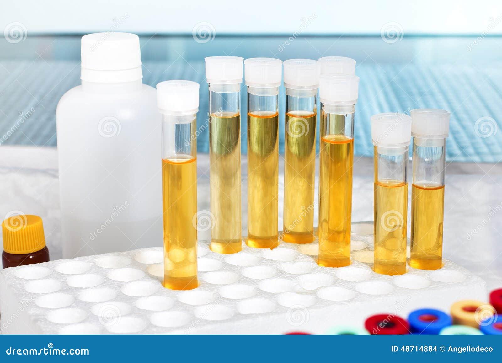 Banchi Da Lavoro Per Laboratorio Analisi : Analisi di urina in laboratorio fotografia stock immagine di