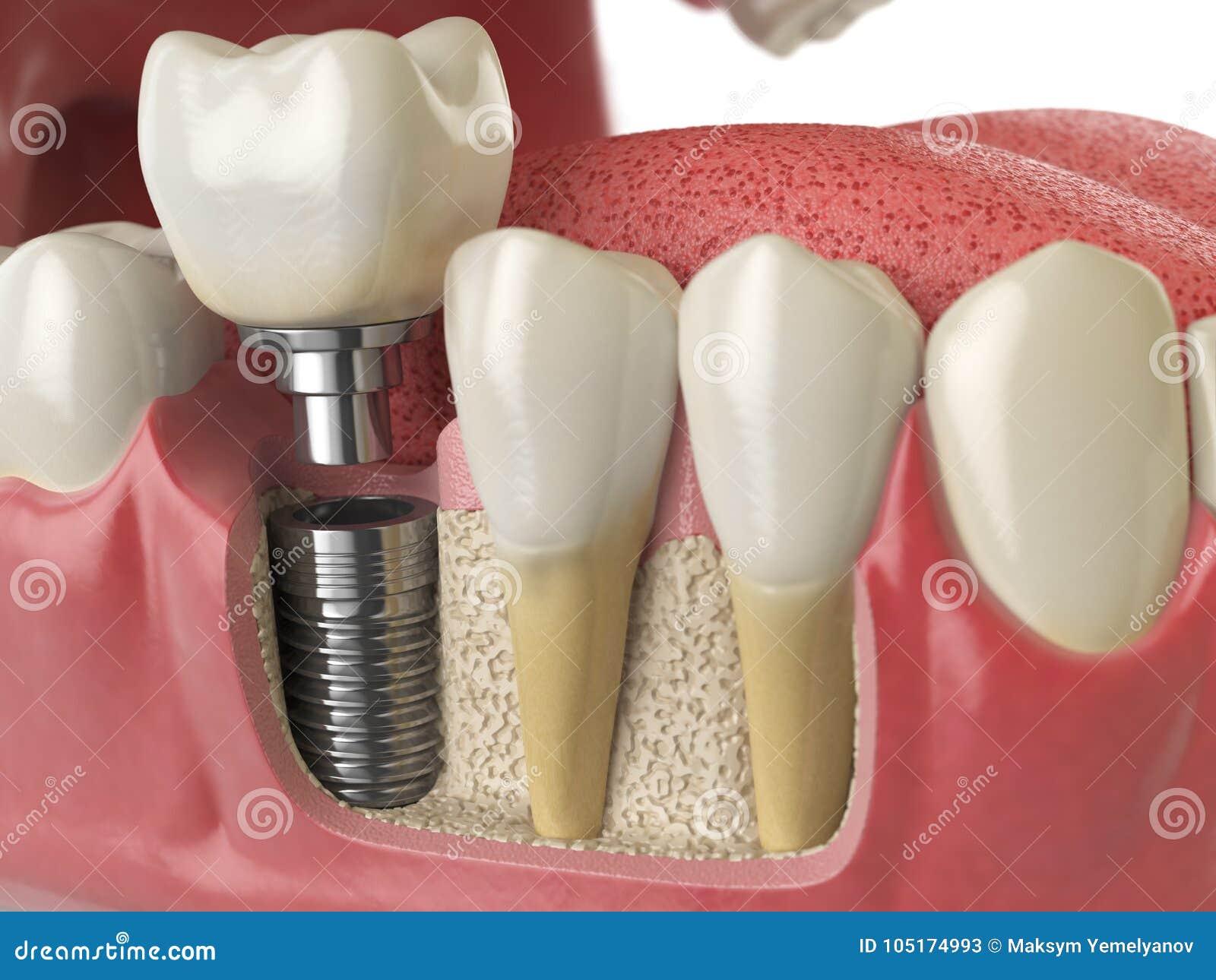 Anatomía De Dientes Sanos Y Del Implante Dental Del Diente En Dentu ...