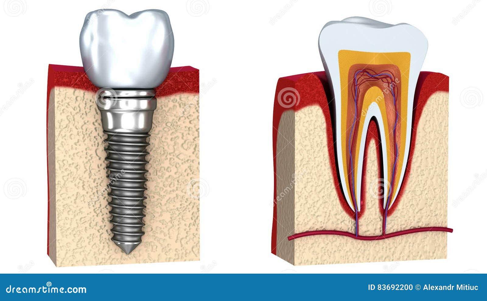 Anatomía De Dientes Sanos Y Del Implante Dental En Hueso Del ...