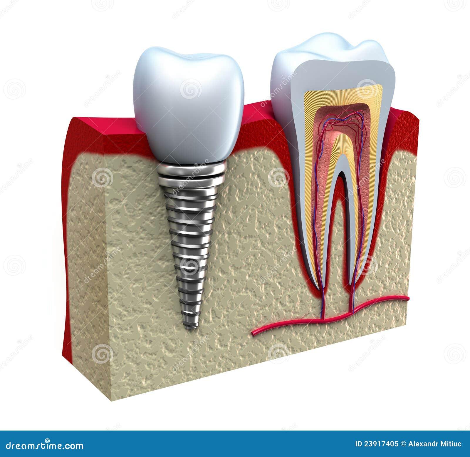 Anatomía dental stock de ilustración. Ilustración de canal - 8747128