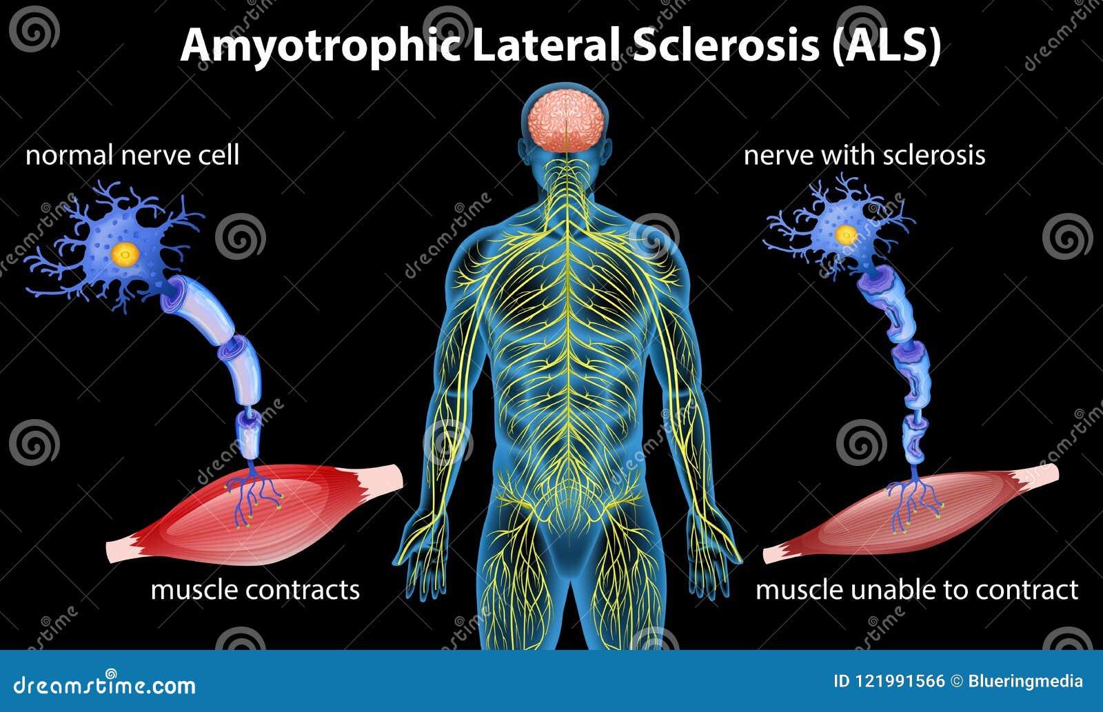 Anatomía De La Esclerosis Lateral Amiotrófica Ilustración del Vector ...