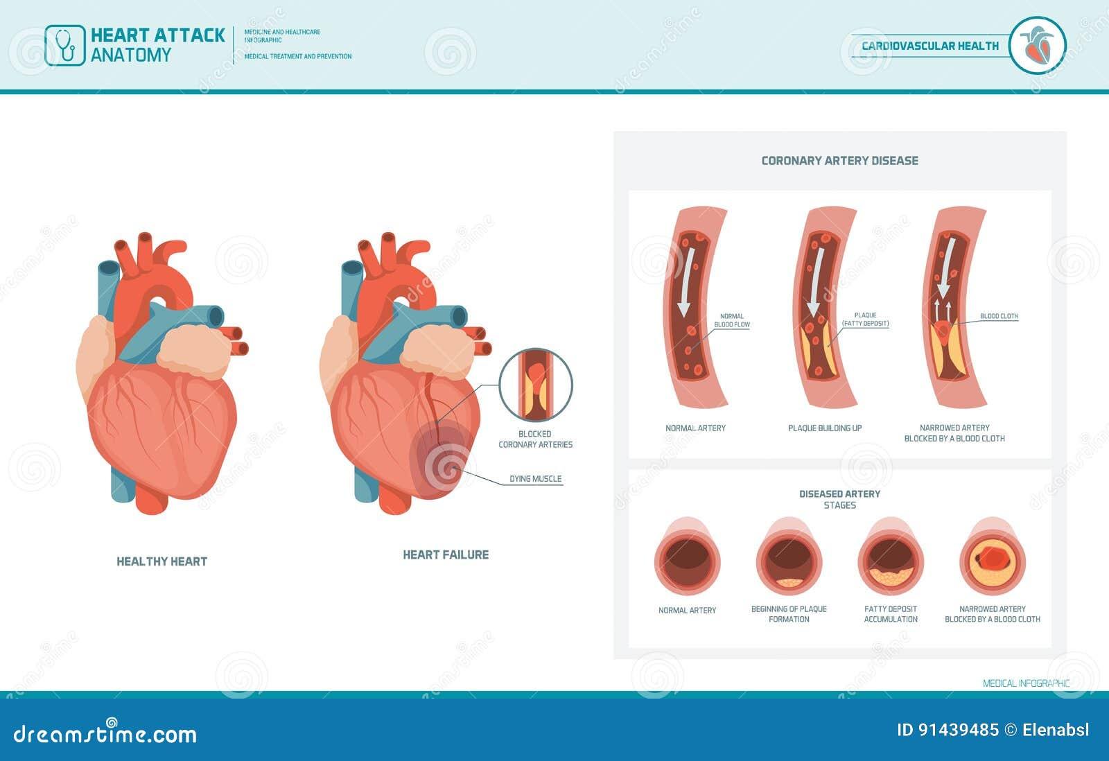 Anatomía De Un Ataque Del Corazón Ilustración del Vector ...