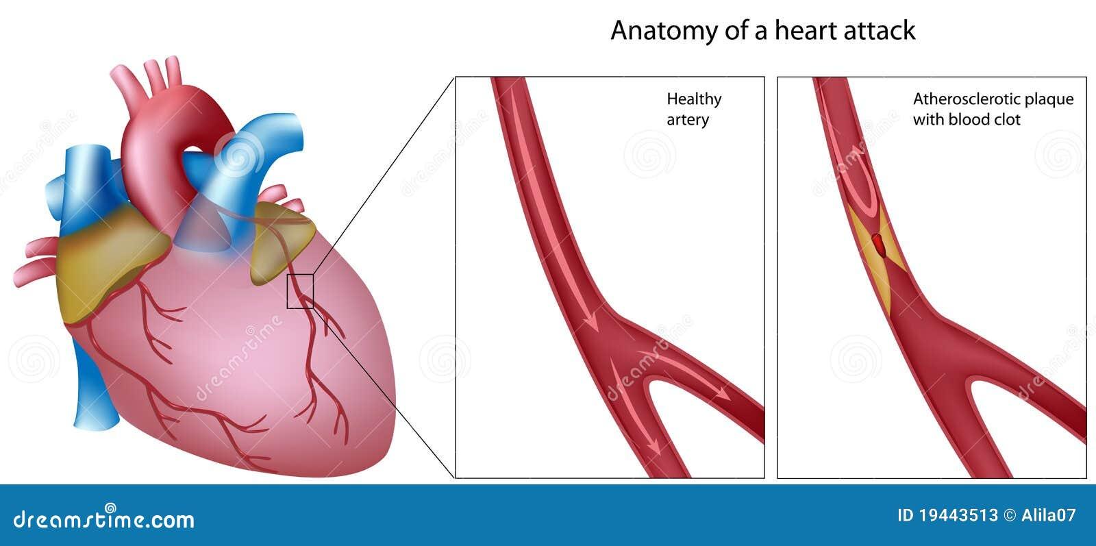 Anatomía Del Ataque Del Corazón Ilustración del Vector - Ilustración ...