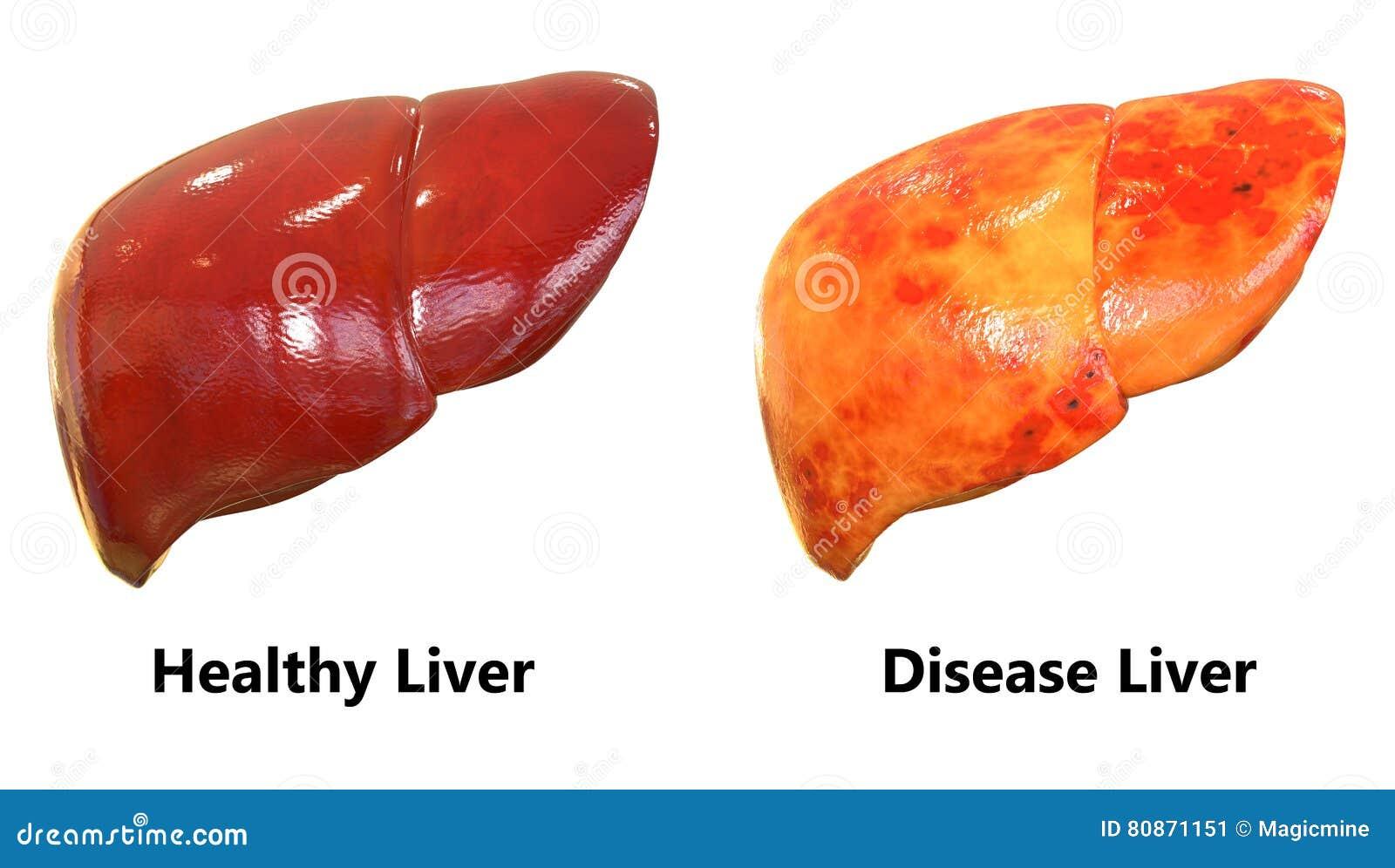 Anatomía Del Hígado De Los órganos Del Cuerpo Humano Stock de ...