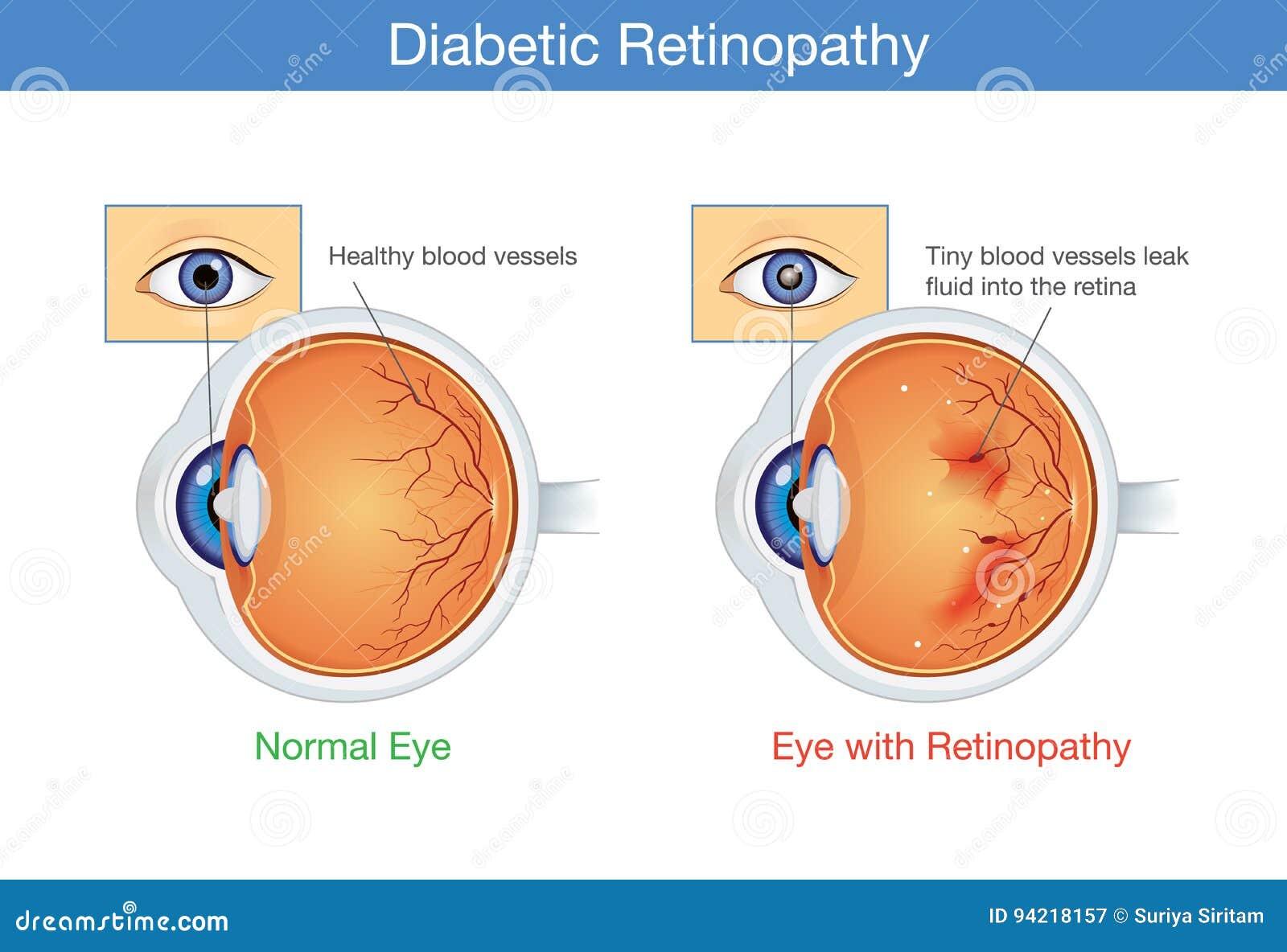 Anatomía Del Ojo Normal Y De La Retinopatía Diabética Ilustración ...