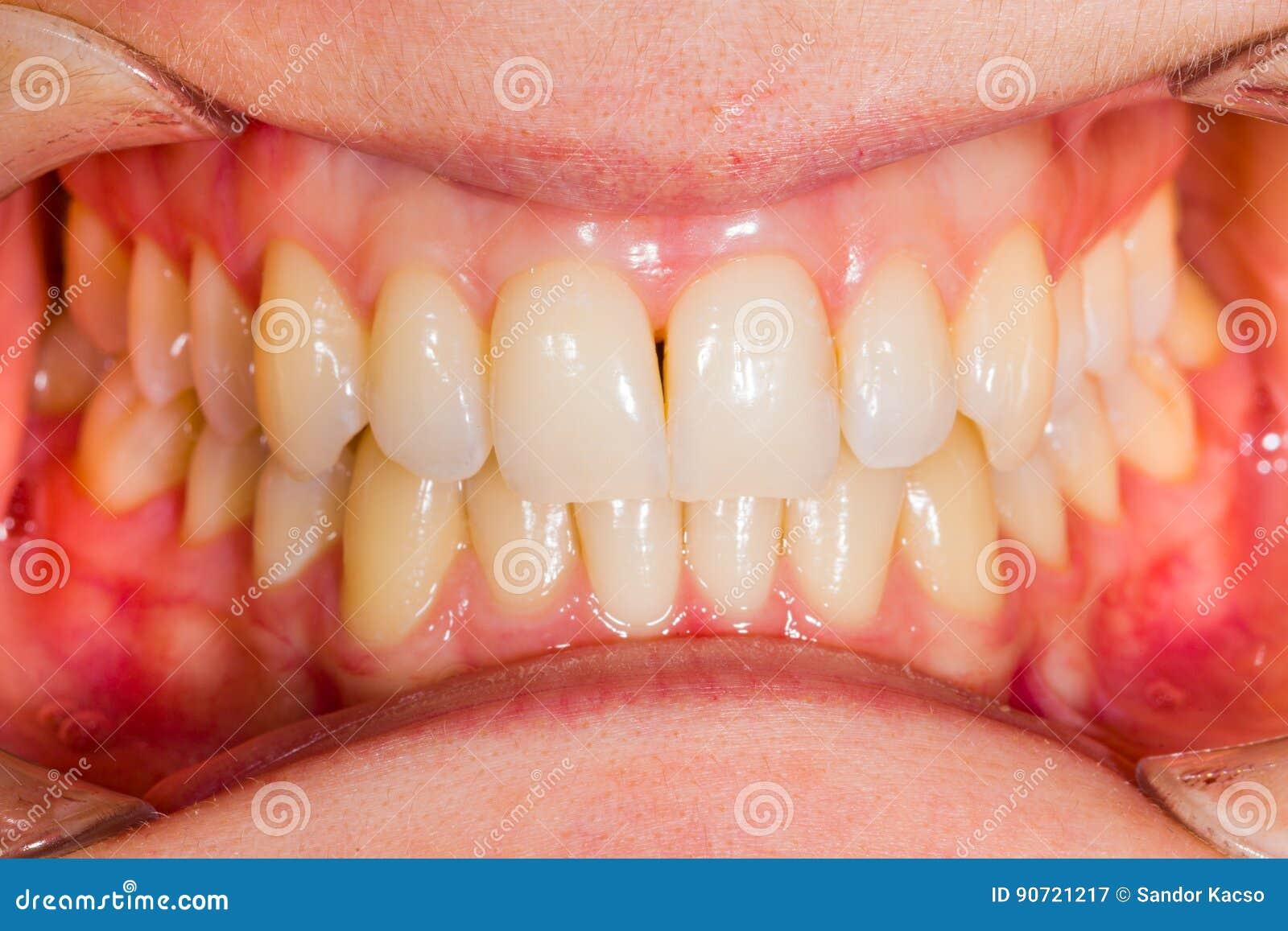 Anatomía dental imagen de archivo. Imagen de médico, mujer - 90721217