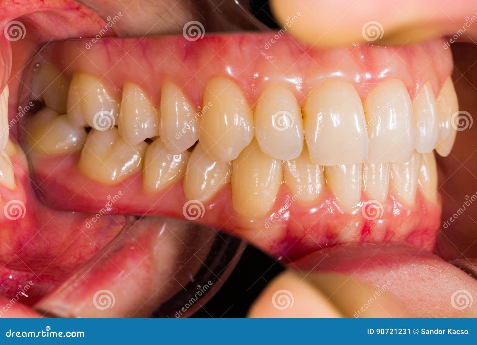 Anatomía dental imagen de archivo. Imagen de hecho, hembra - 90721231