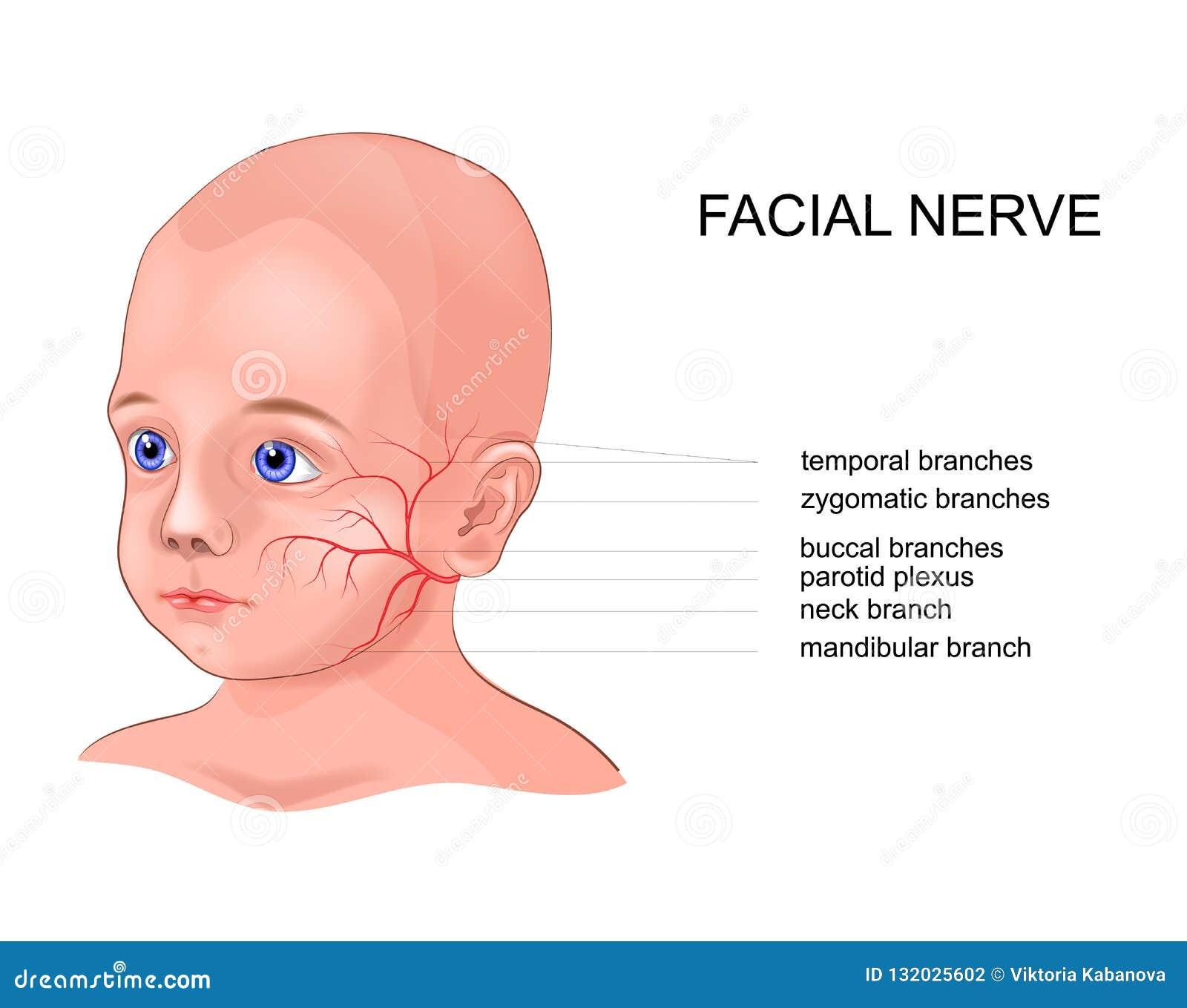 Del facial inflamacion nervio