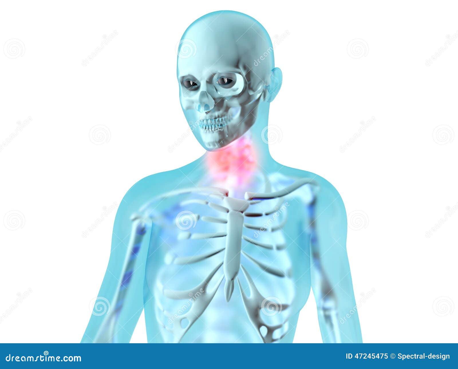 Anatomía Femenina - Dolor De La Garganta Stock de ilustración ...