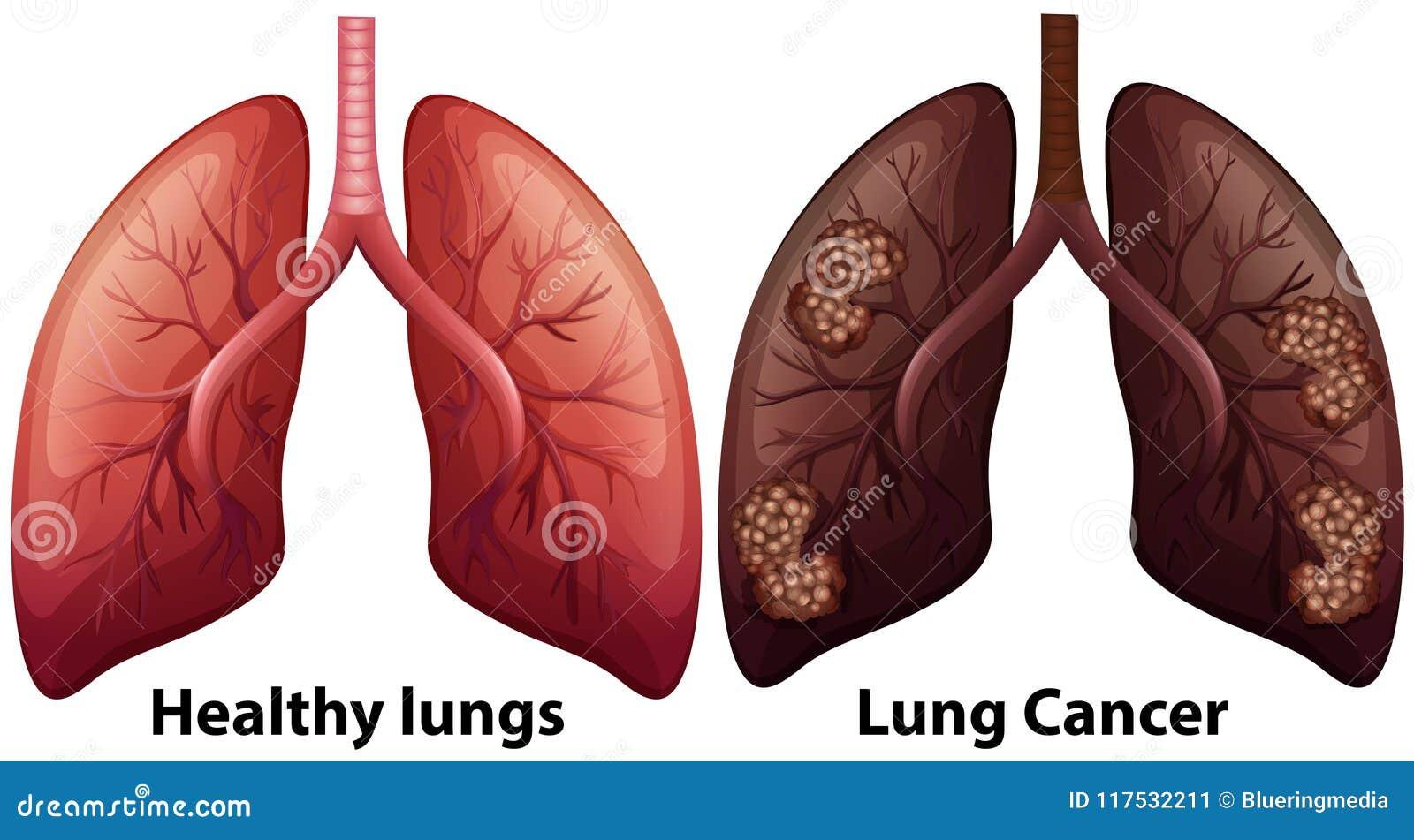 lung disease symptoms