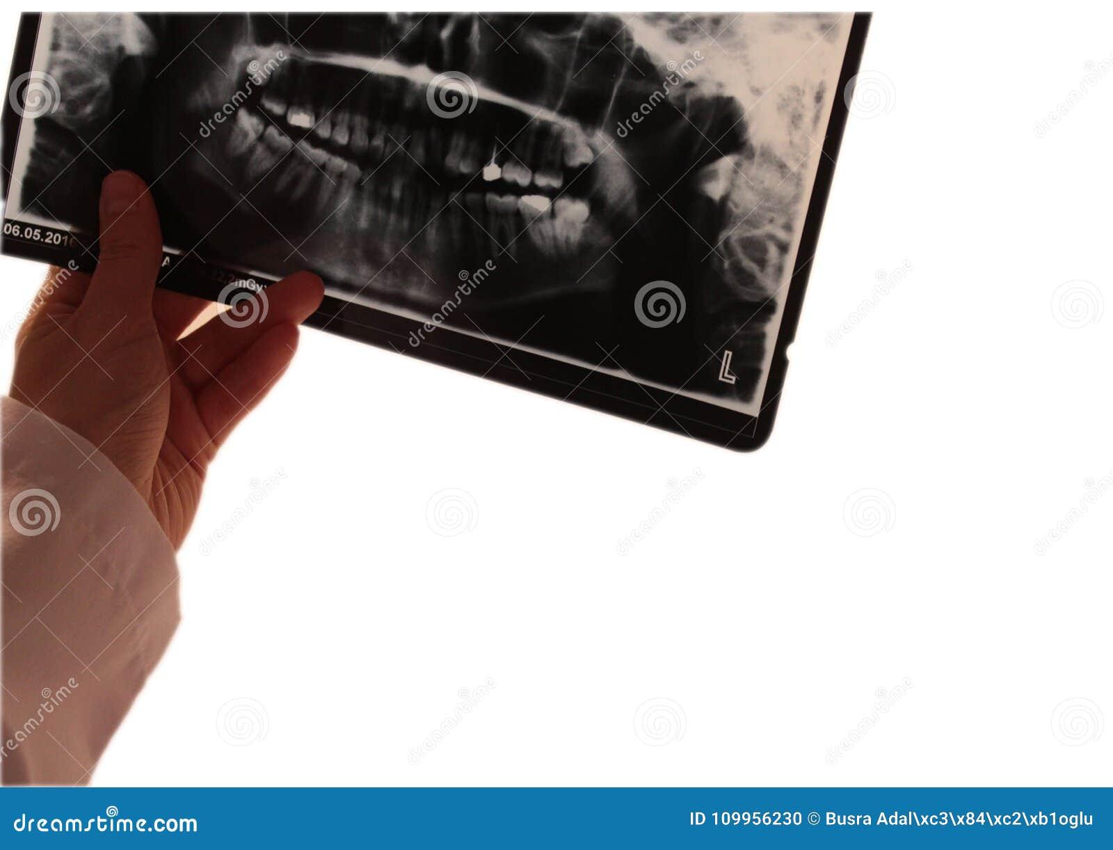 Anatomía Radiograpy Del Dentista Dental Del Diente Foto de archivo ...