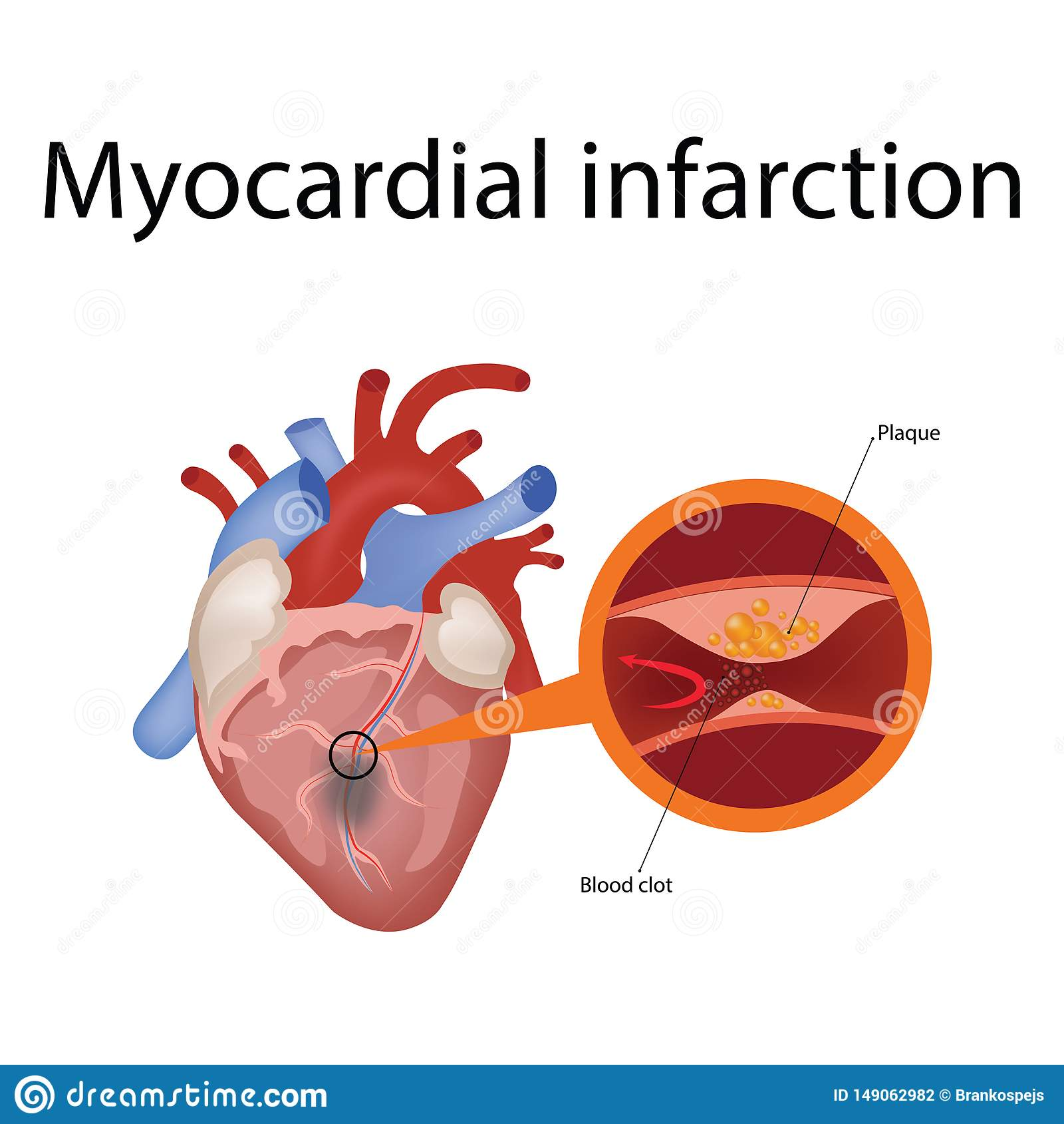 Anatom?a del coraz?n y tipos de ejemplo del vector de la enfermedad card?aca