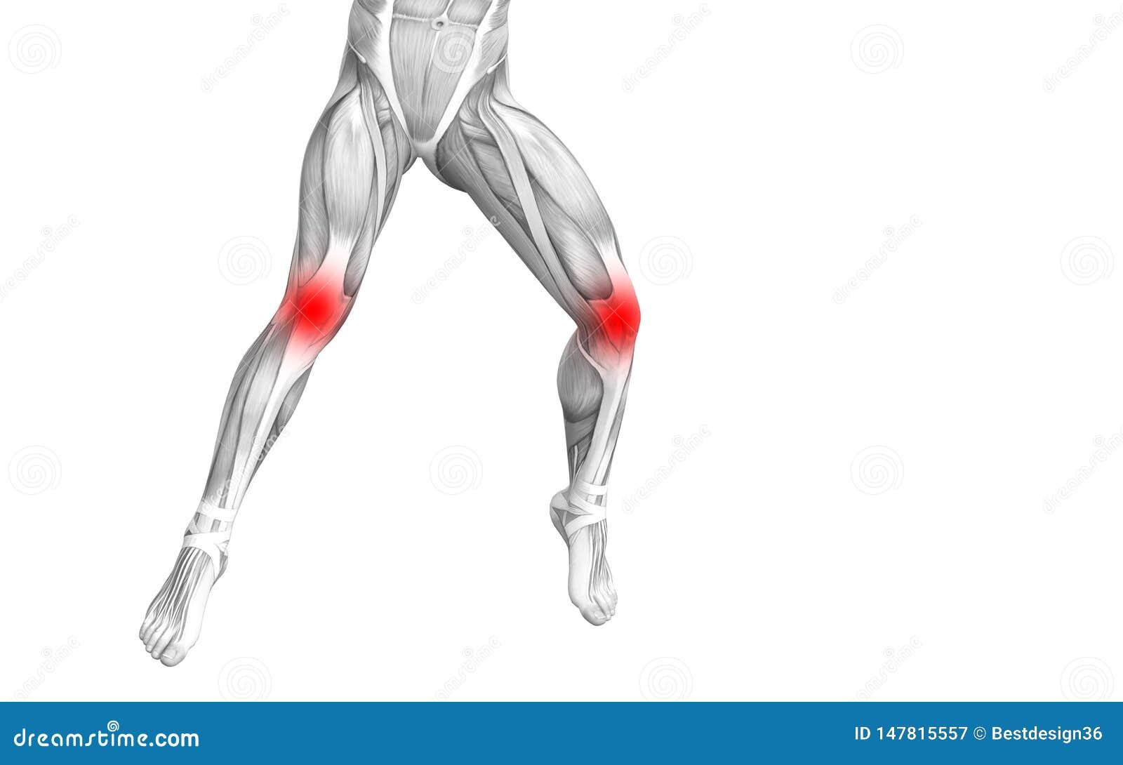 Anatomia humana do joelho com inflama??o encarnado do ponto