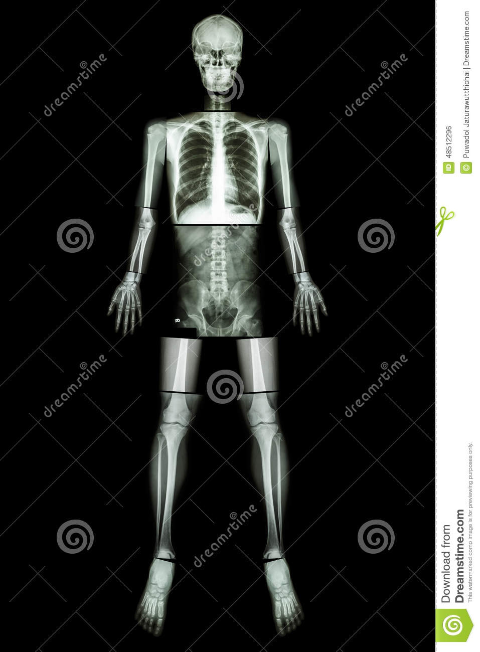 Stock Photo  Anatomical Position   X-ray whole body  X Ray Whole Body