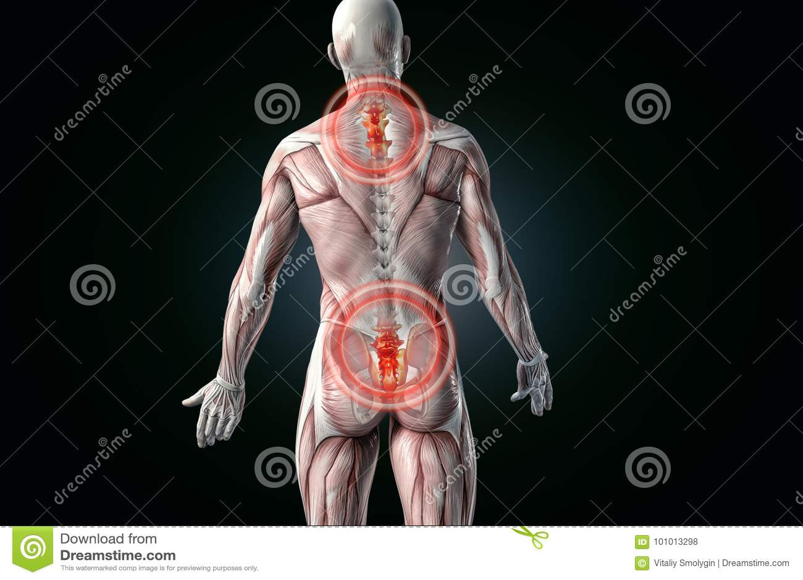 Anatomical Vision Back Pain. Lower Back Pain. Stock Illustration ...