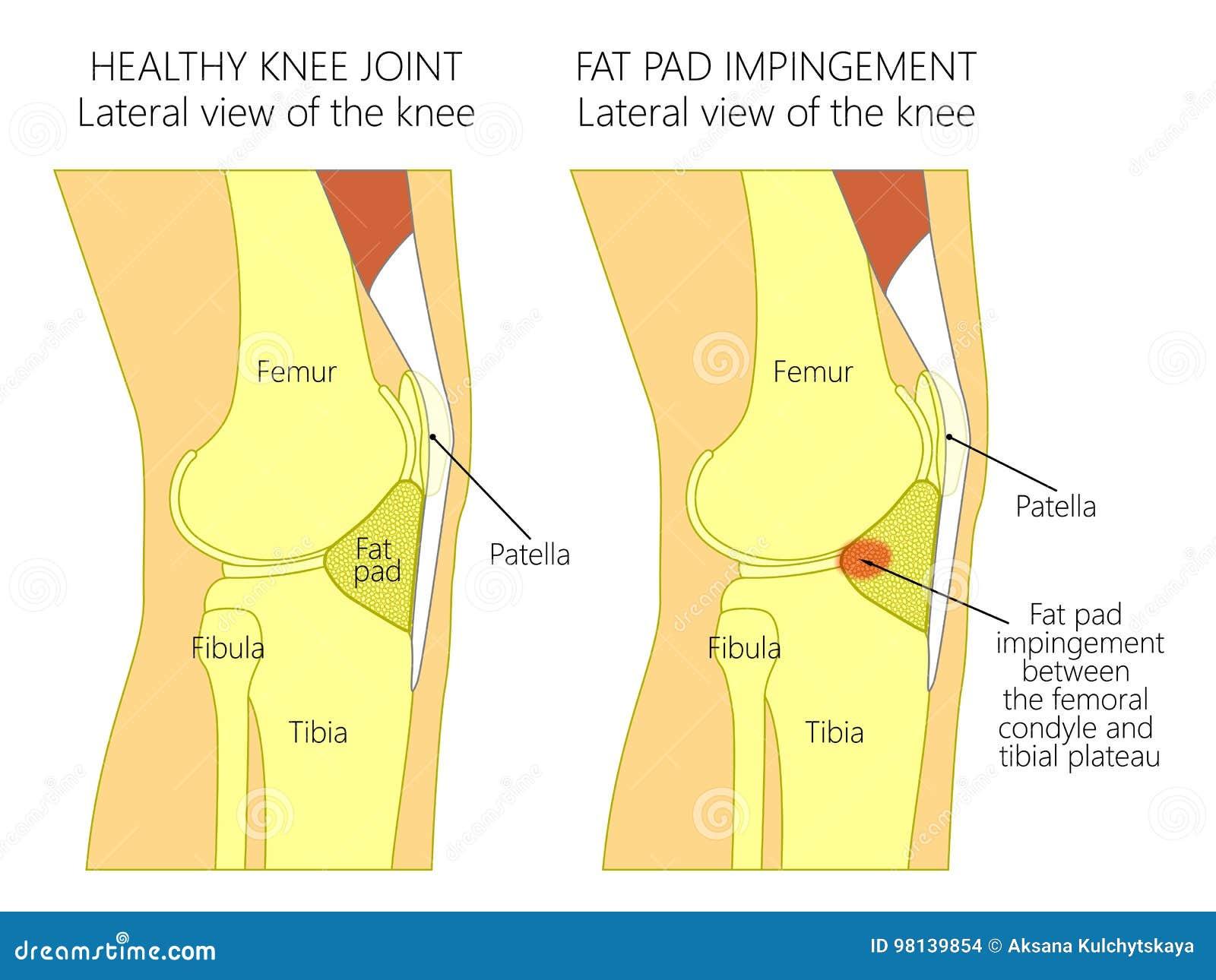 Anatomie Des Knee_Fat Auflagen-Zusammenstoßsyndroms Vektor Abbildung ...