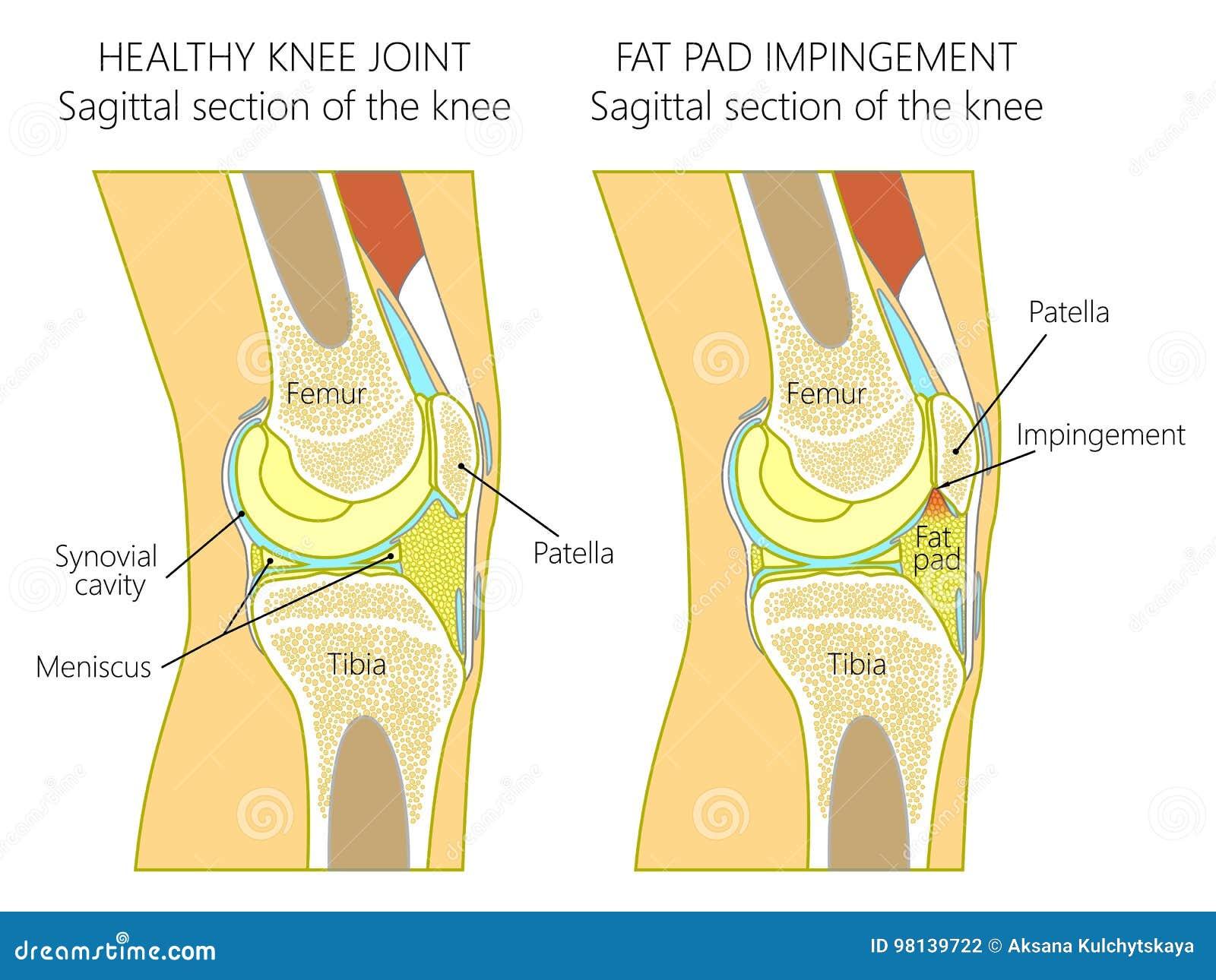 Anatomie Des Knee_Fat Auflagenzusammenstoßes Wegen Der ...