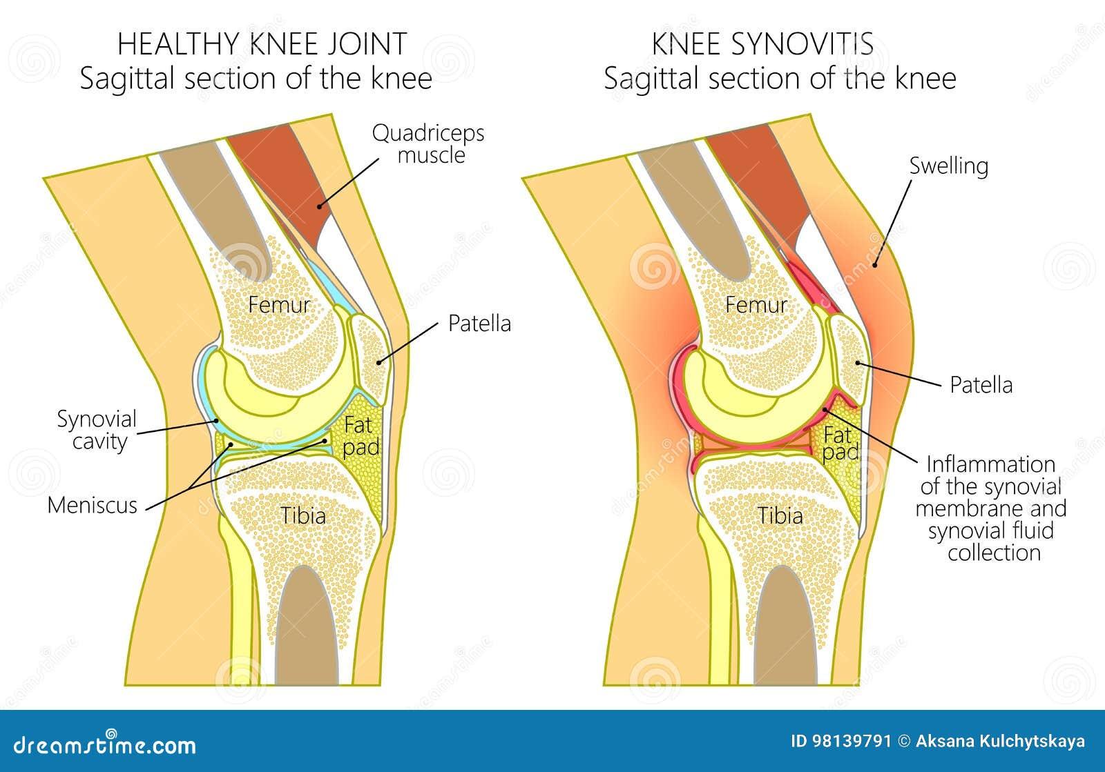 Anatomie Des Knee_synovitis Vektor Abbildung - Illustration von hurt ...