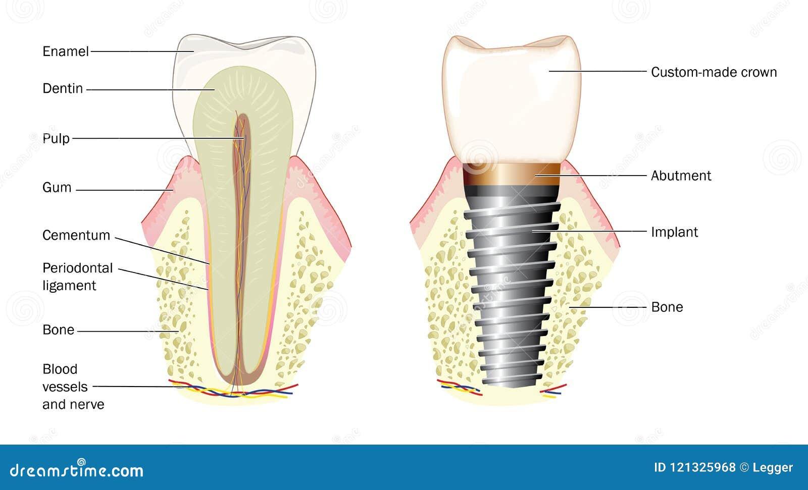 Anatomie Eines Zahnes Und Des Zahnimplantats Vektor Abbildung ...