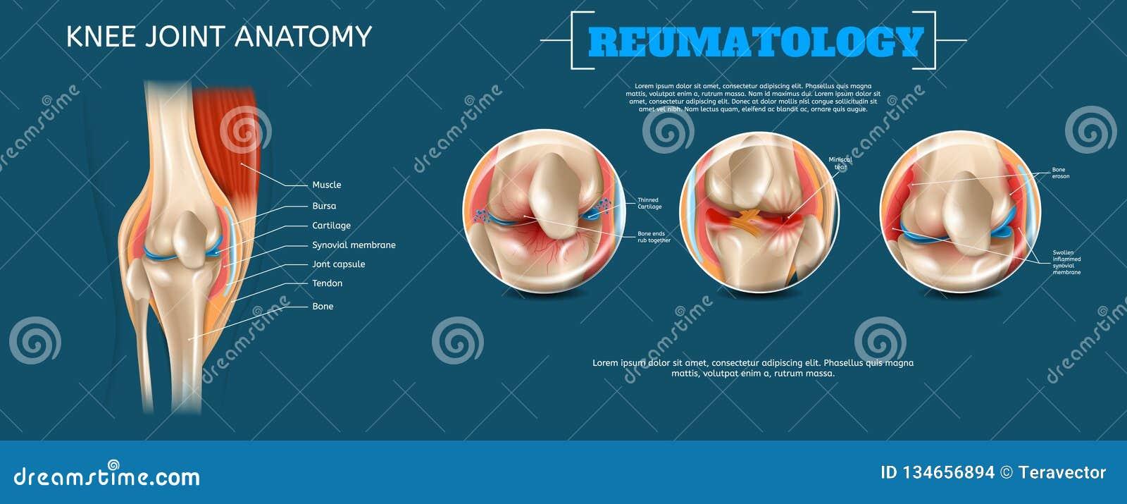 Anatomie réaliste d articulation du genou d illustration de bannière