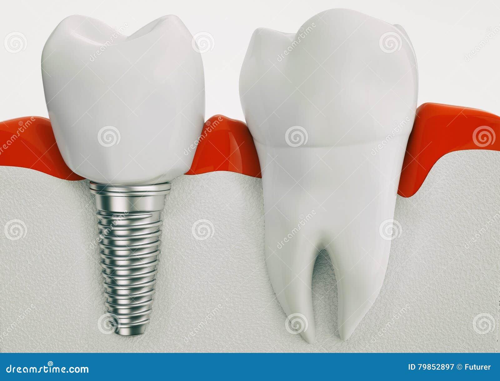 Anatomie Von Gesunden Zähnen Und Von Zahnimplantat Im Kieferknochen ...