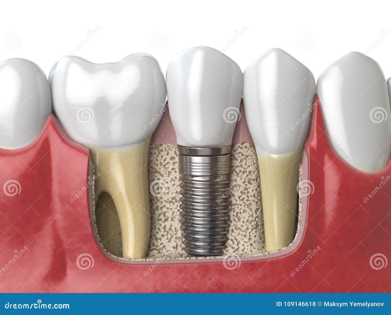 Anatomie Von Gesunden Zähnen Und Von Zahnimplantat Des Zahnes Im ...