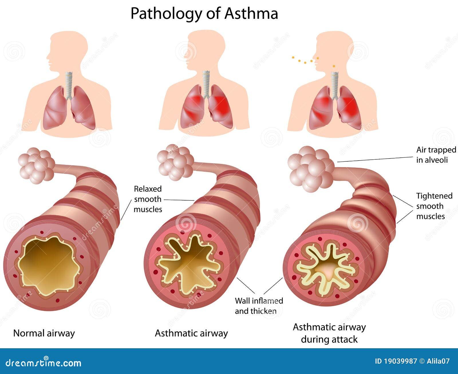 Bathroom Designers Anatomy Of Asthma Royalty Free Stock Photography Image