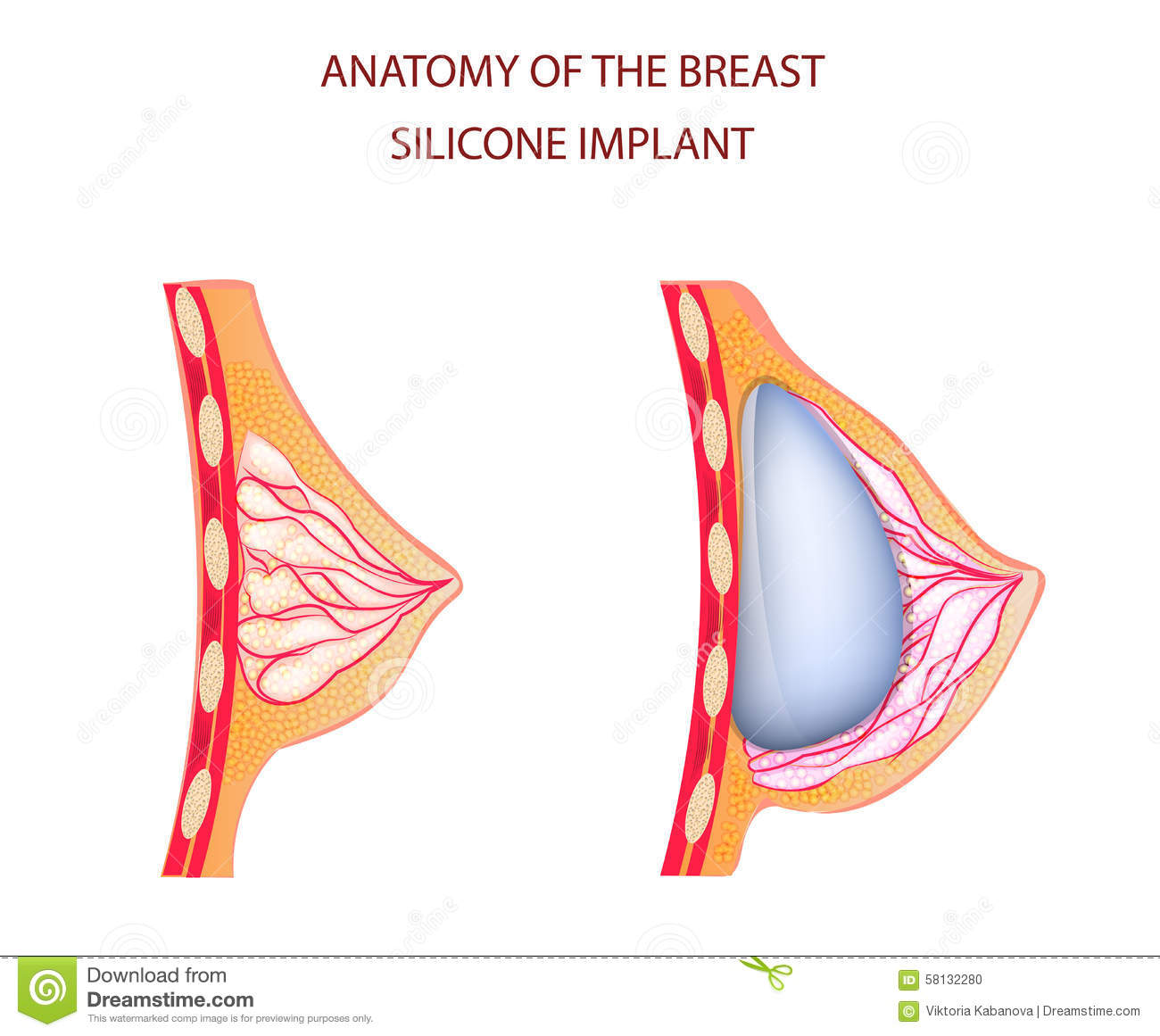Anatomy Of Breast Silicone Implant Stock Vector Illustration Of