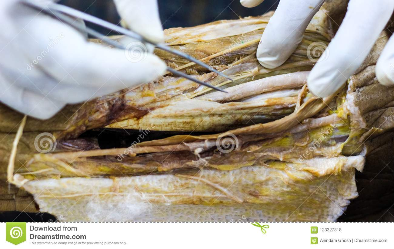 Anatomy Dissection Of A Cadaver Showing Adductor Canal Using Scalpel ...