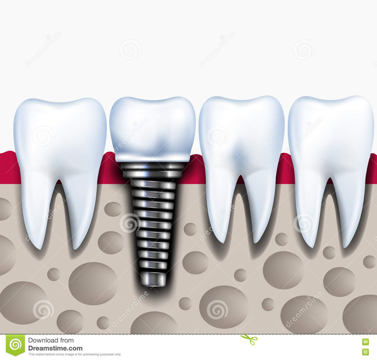 Anatomy Of Healthy Teeth And Dental Implant In Jaw Bone Stock