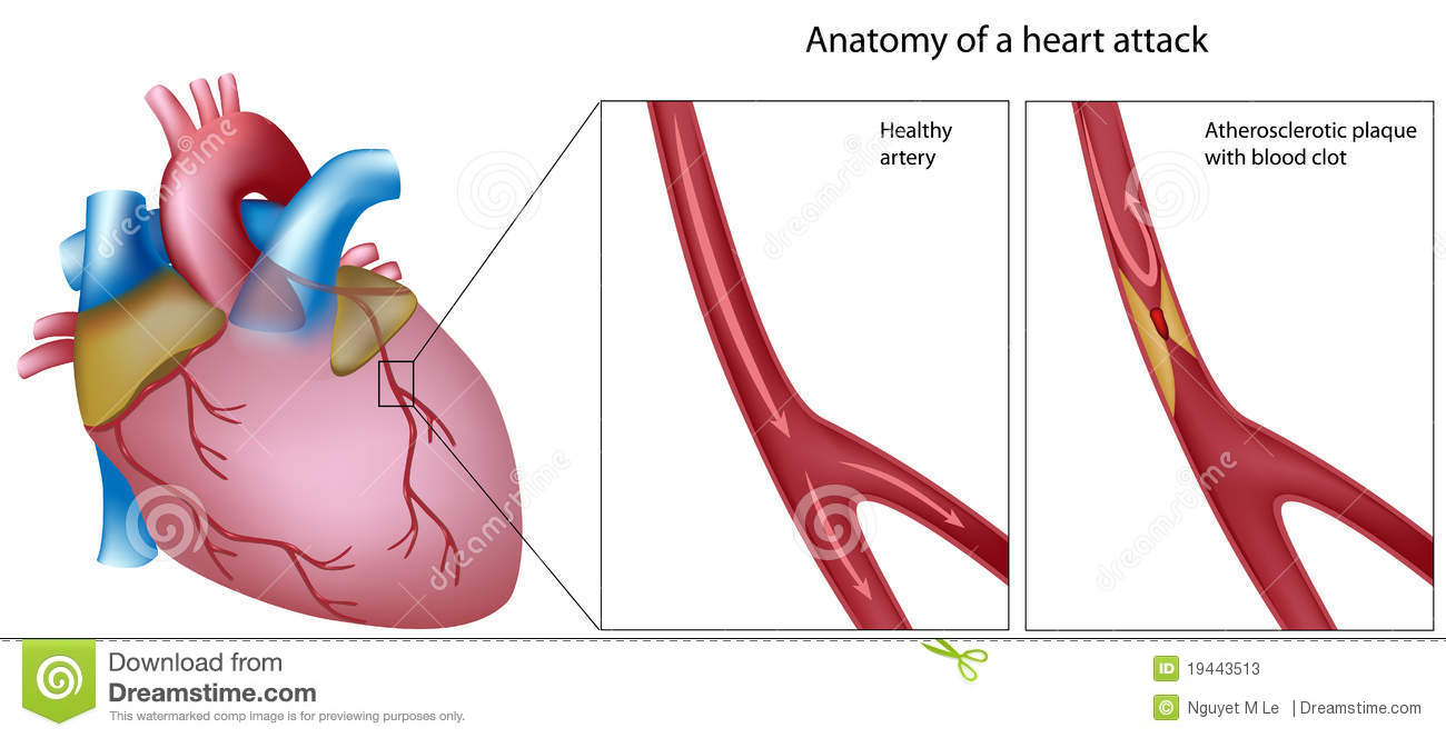 Anatomy Of Heart Attack Stock Vector Illustration Of Disease 19443513