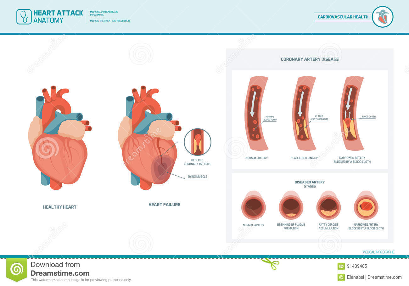 Anatomy Of A Heart Attack Stock Vector Illustration Of Blood 91439485