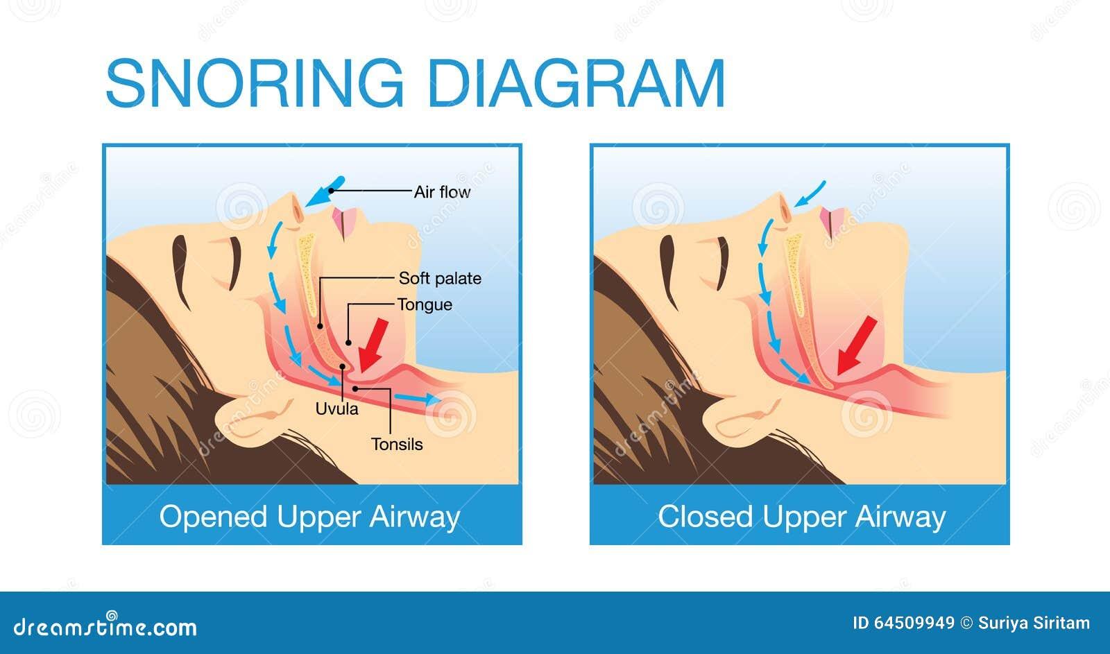 anatomy of human airway while snoring
