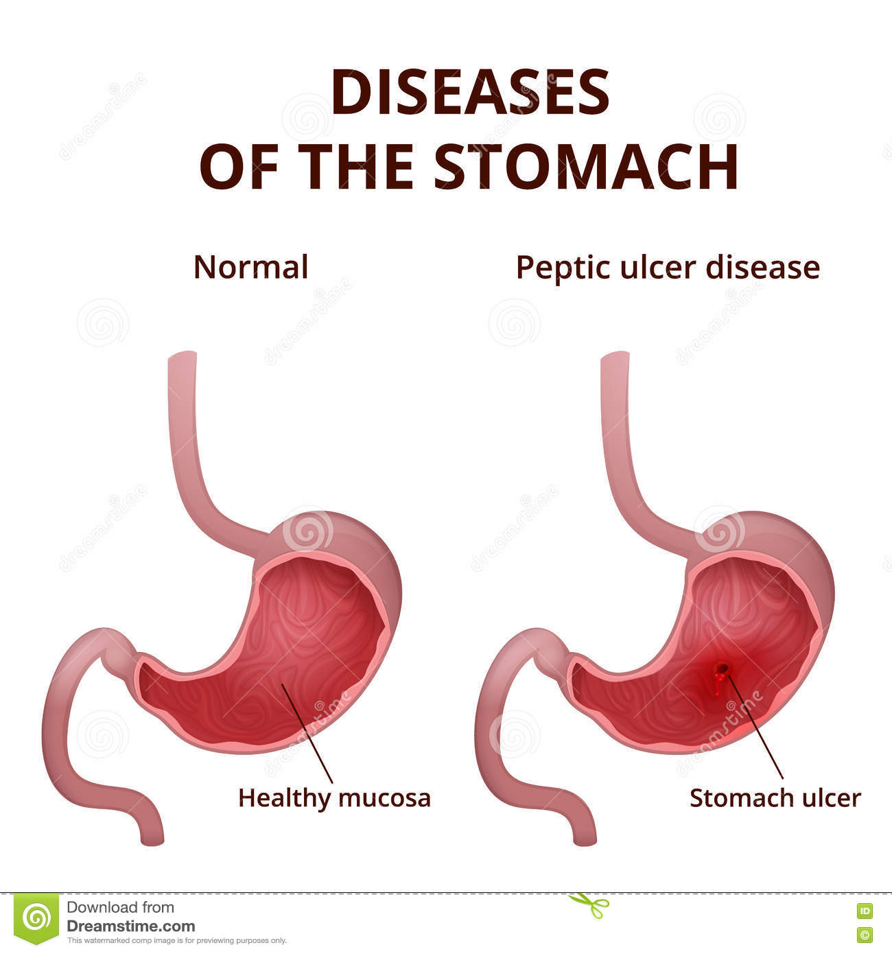 peptic ulcer stomach poster cartoon vector | cartoondealer ... tumor vs ulcer diagram