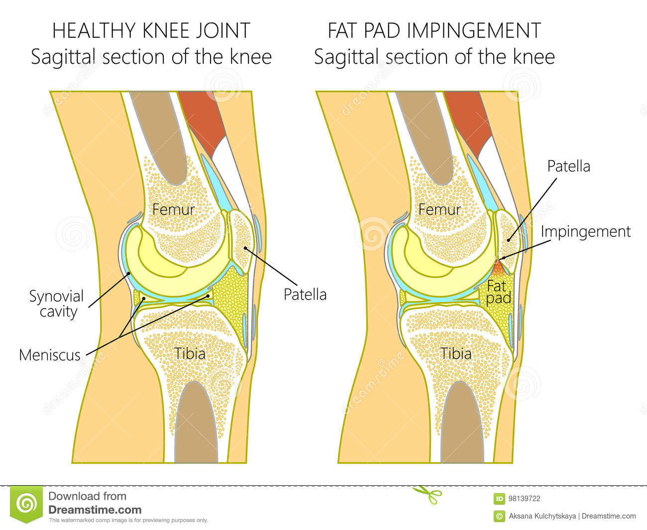 Anatomy Of The Knee_Fat Pad Impingement Due To Hyperextension Stock ...
