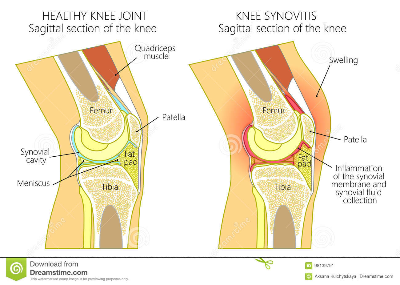 For Knee Joint Diagram Sagittal View - Auto Electrical Wiring Diagram •