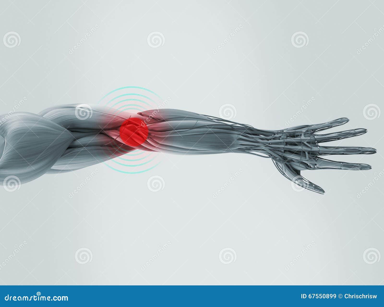 Anatomy Model Showing Elbow Pain. Stock Illustration - Illustration ...