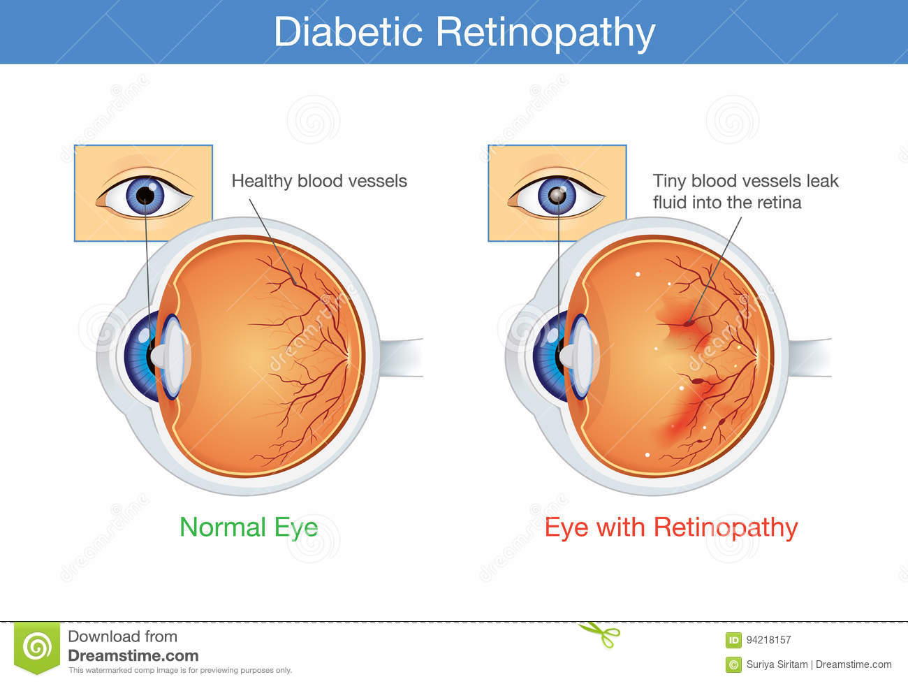 Anatomy Of Normal Eye And Diabetic Retinopathy. Stock Vector ...