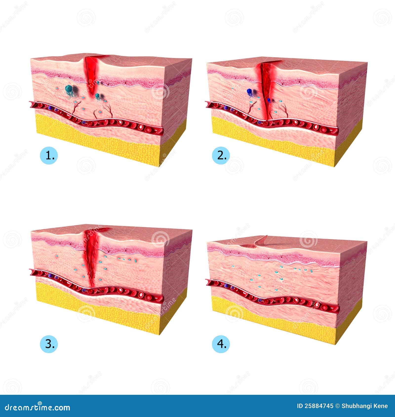 Anatomy Of Tissue Tepair In Human Skin Stock Illustration