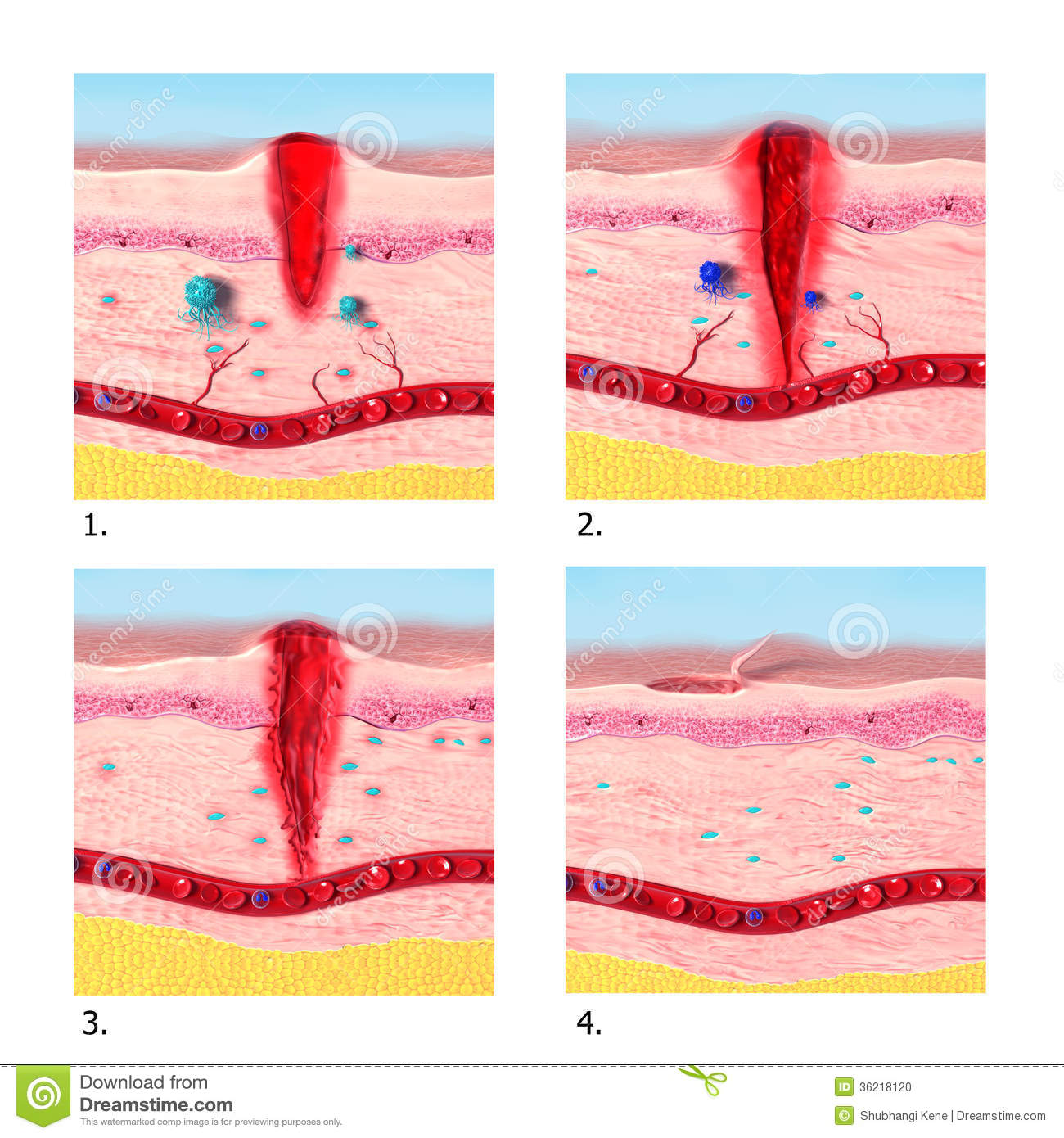 anatomy of tissue tepair in human skin stock photo image
