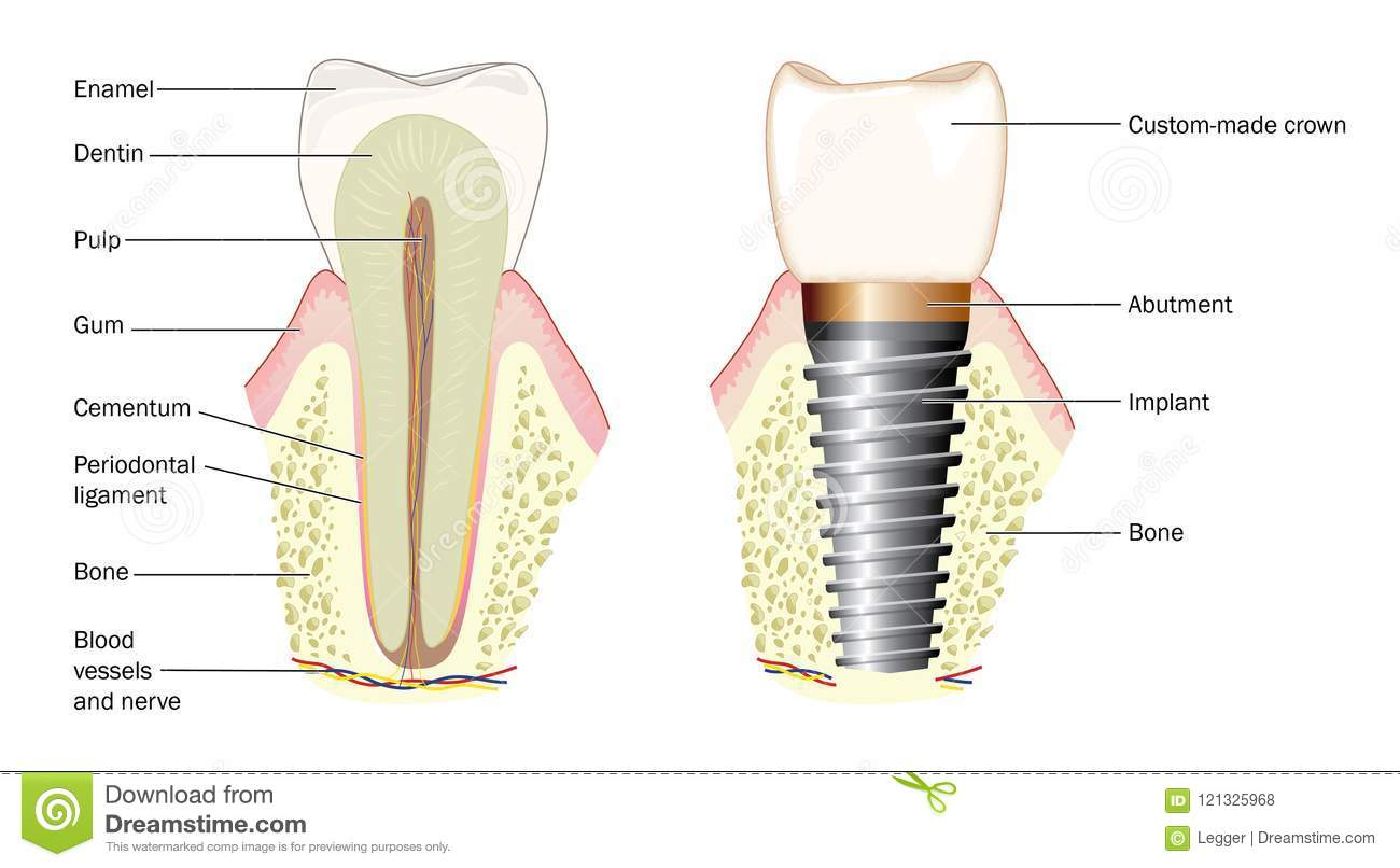 Anatomy Of A Tooth And Dental Implant Stock Vector Illustration Of