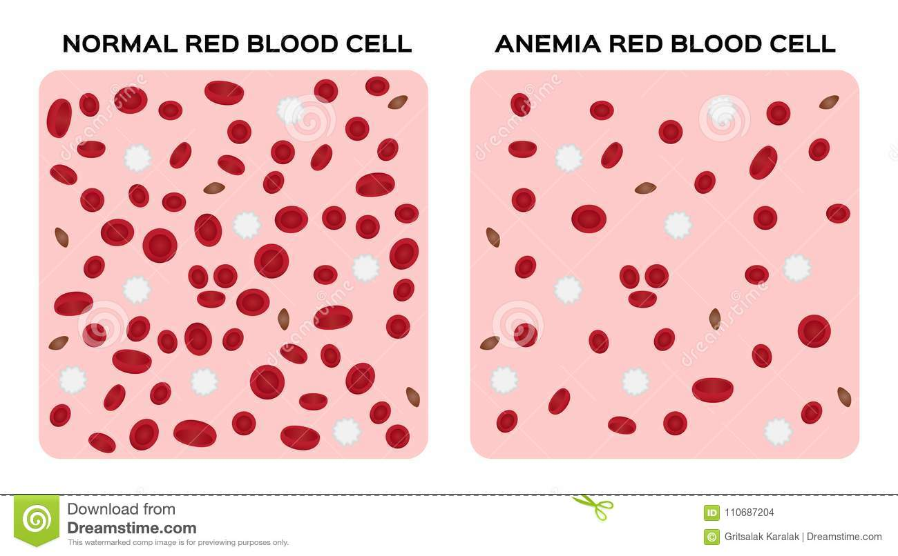 Anemia Blood Anatomy Concept Stock Illustration Illustration Of