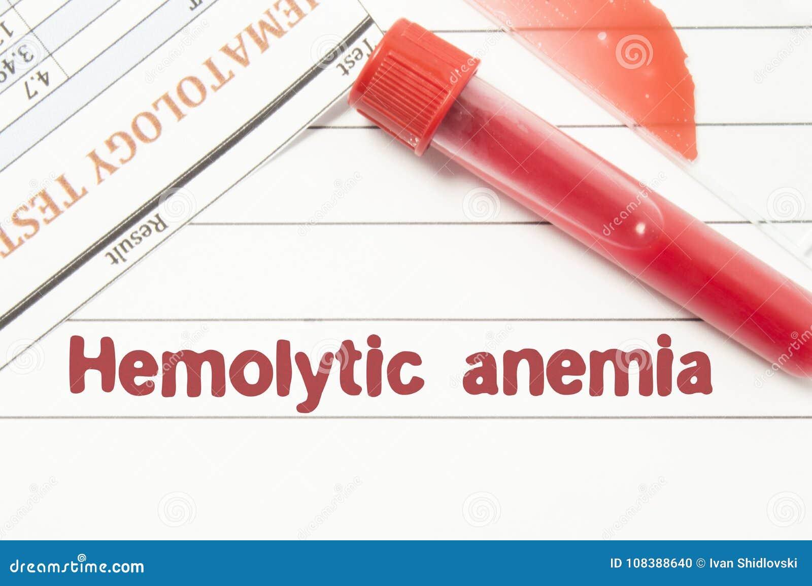 Anemia Hemolytic do diagnóstico O bloco de notas com texto etiqueta a anemia Hemolytic, tubos de análise laboratorial para o sang