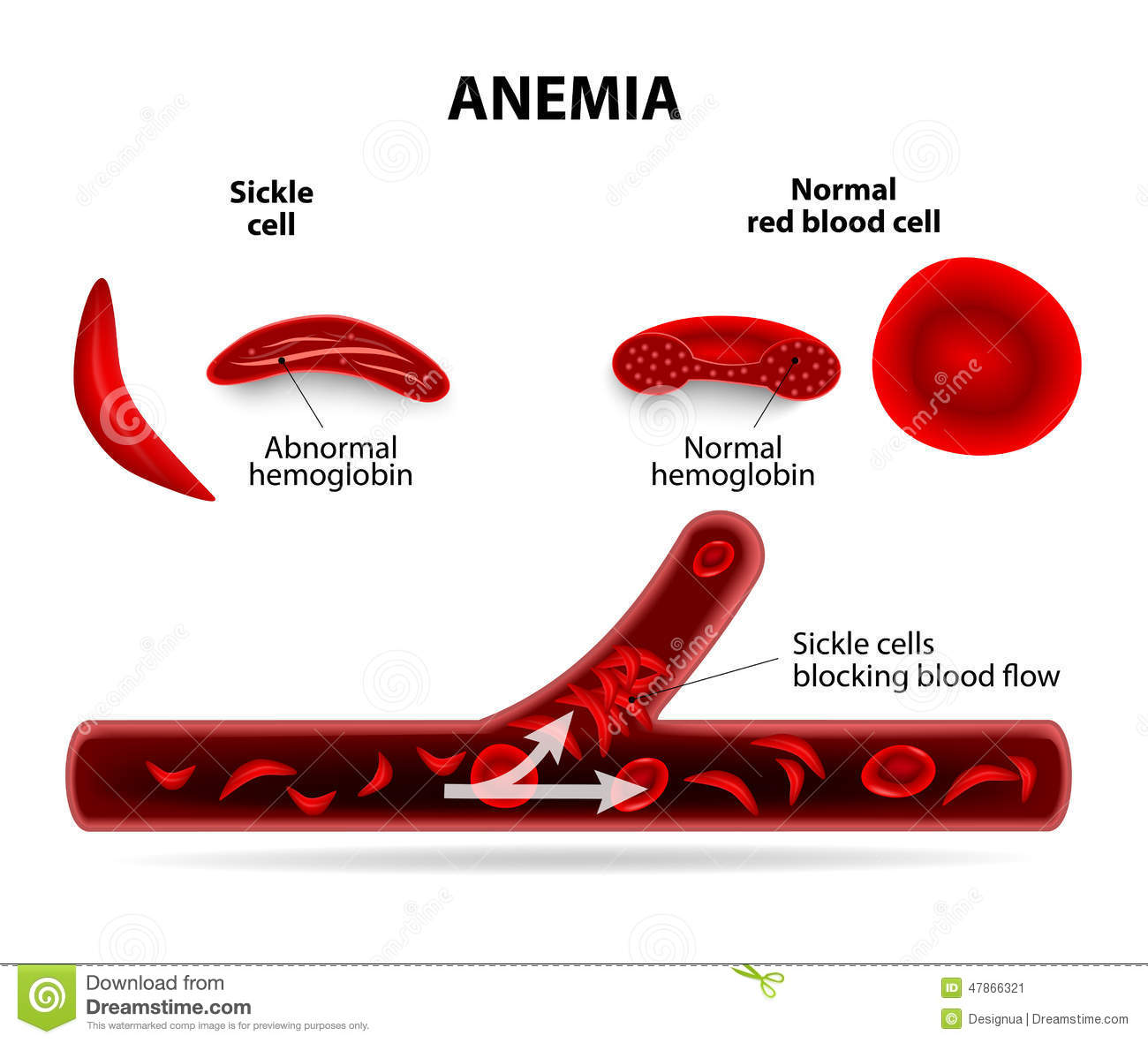 Anemia. sickle cell and normal red blood cell.
