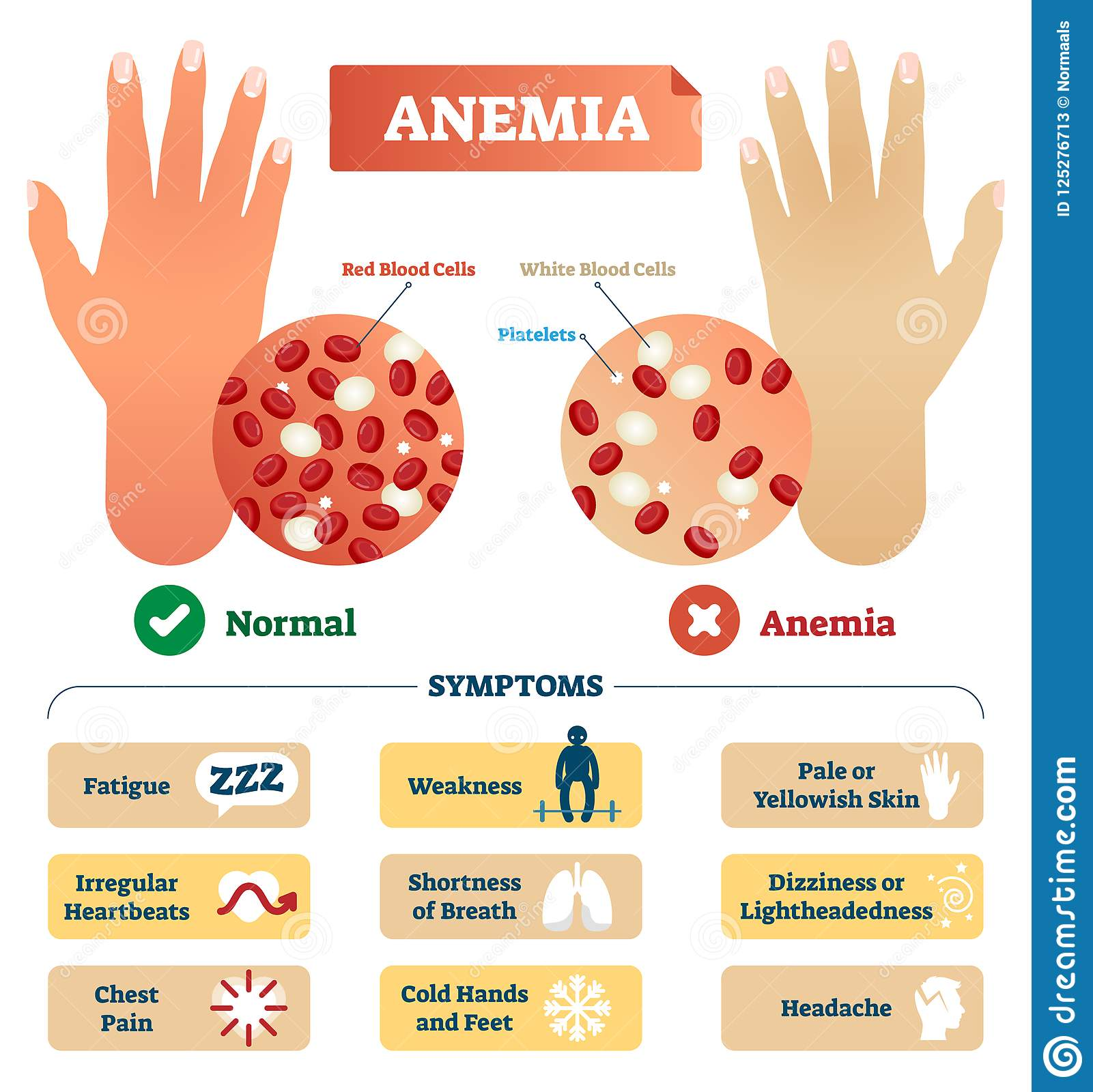 Anemia Cartoons  Illustrations  U0026 Vector Stock Images