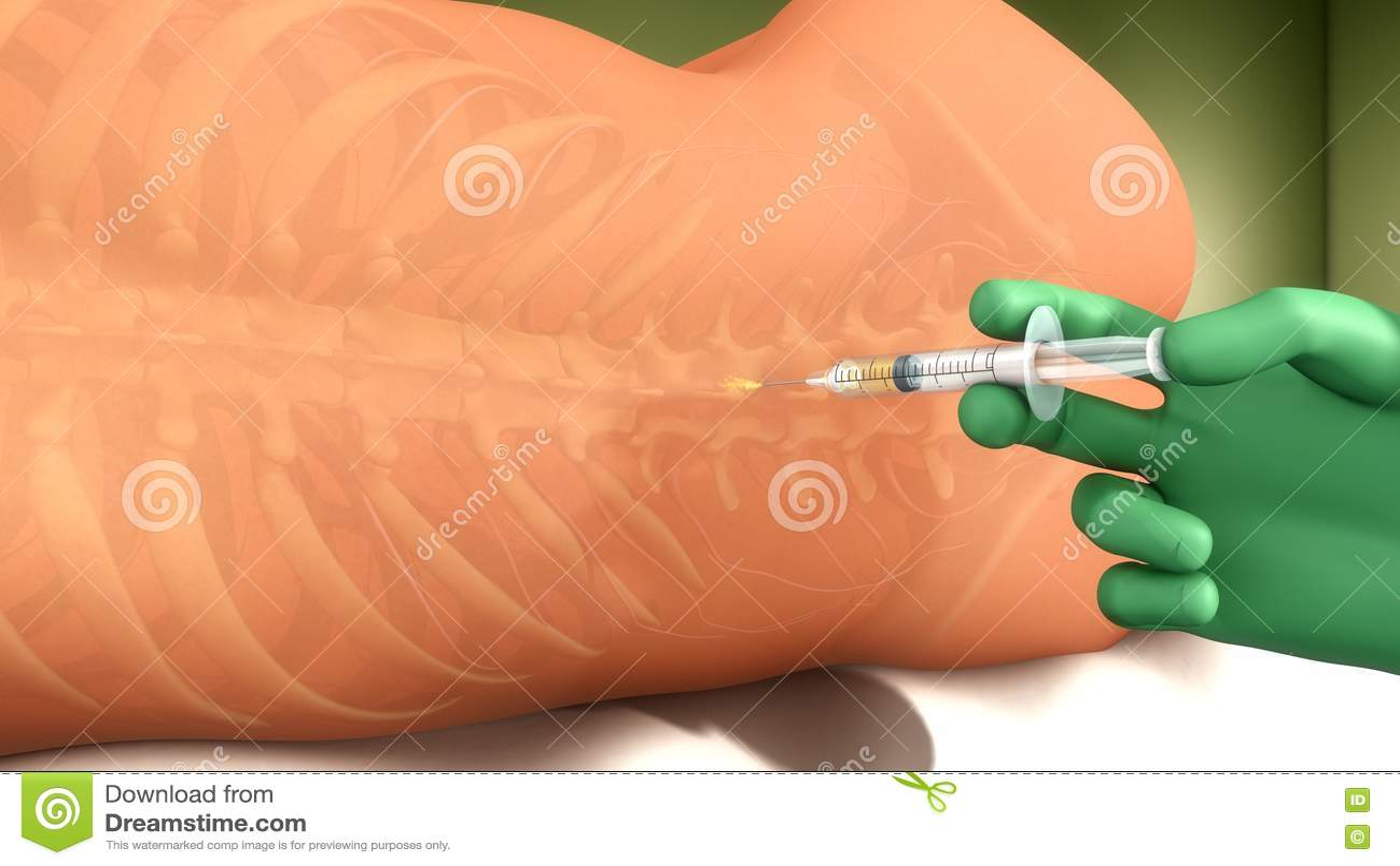 Anestesia espinal stock de ilustración. Ilustración de bebé - 73449798