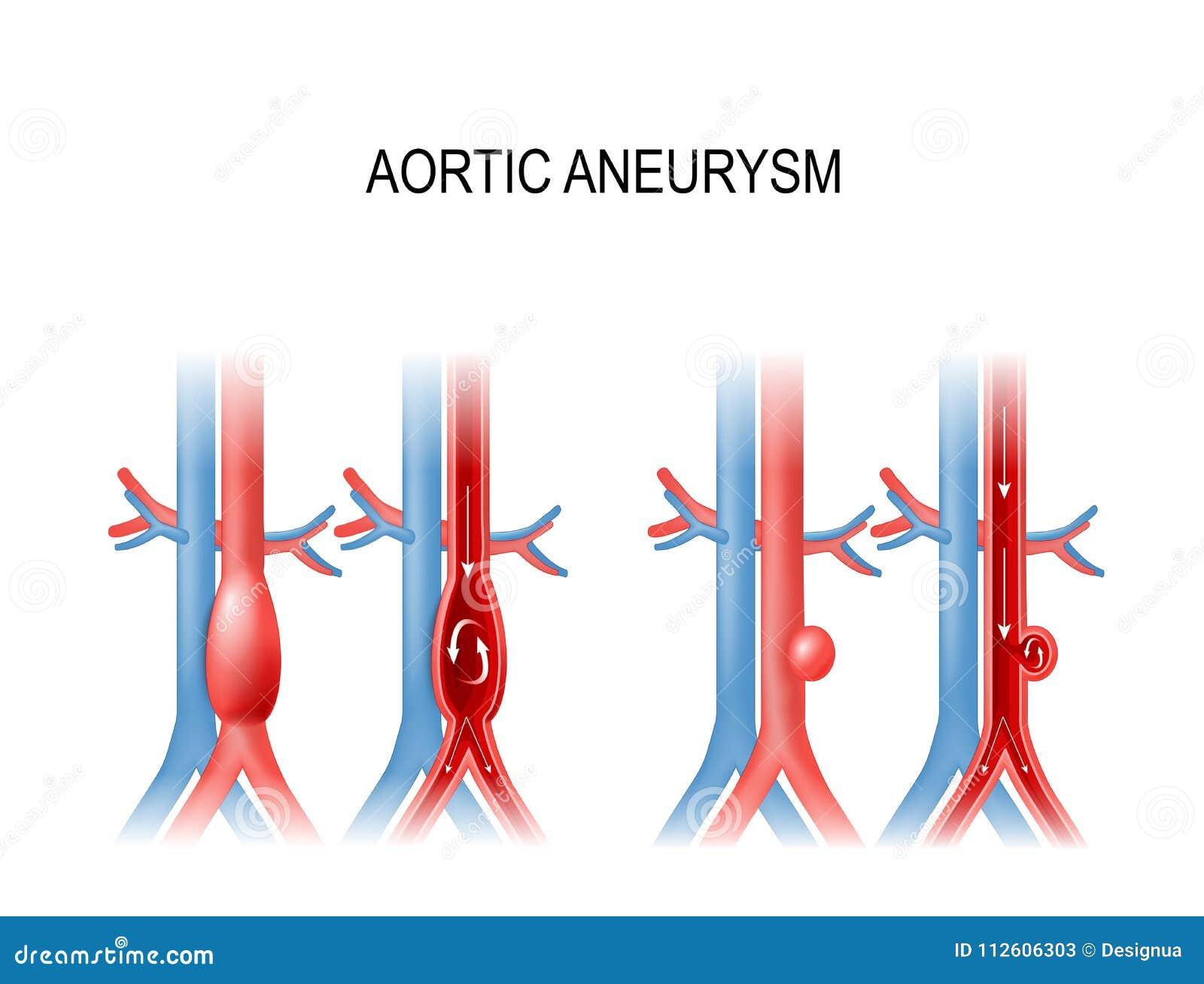 Aneurisma aórtico ilustração do vetor para o uso médico