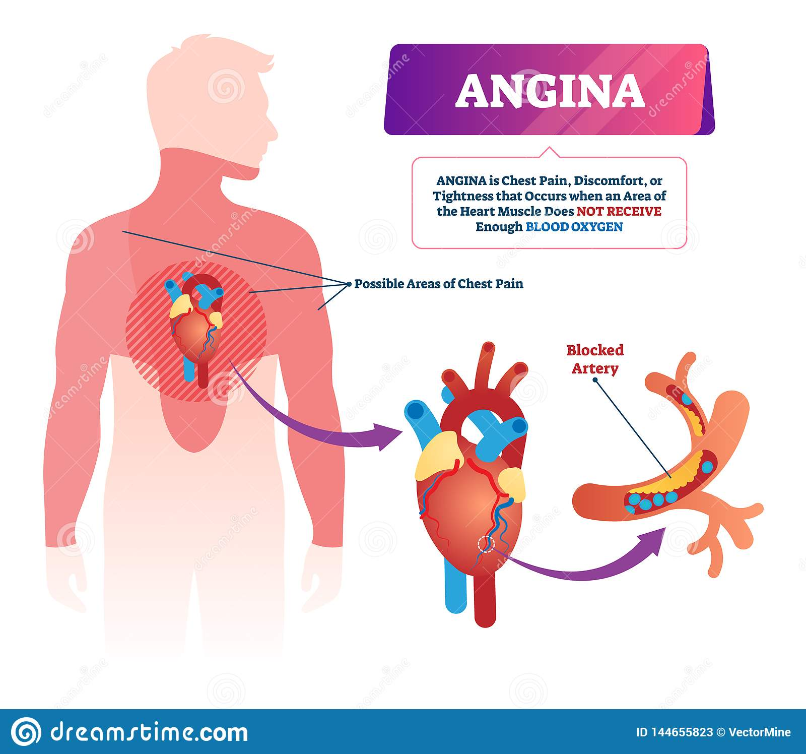 Angina Vector Illustration Labeled Medical Chest Pain And Heart