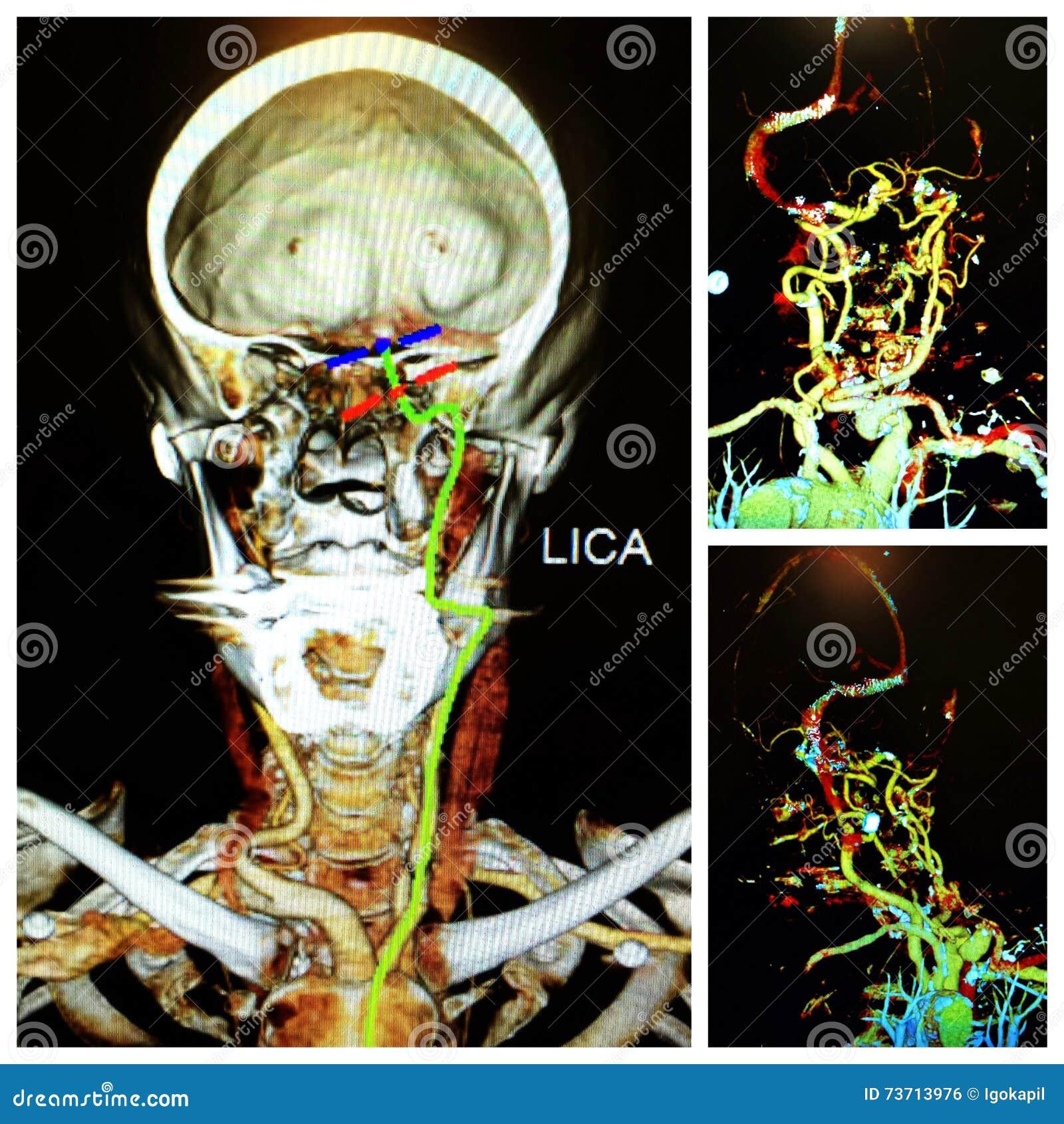 Angio het neuroct scherpe linker herseninfarct van het halsexamen