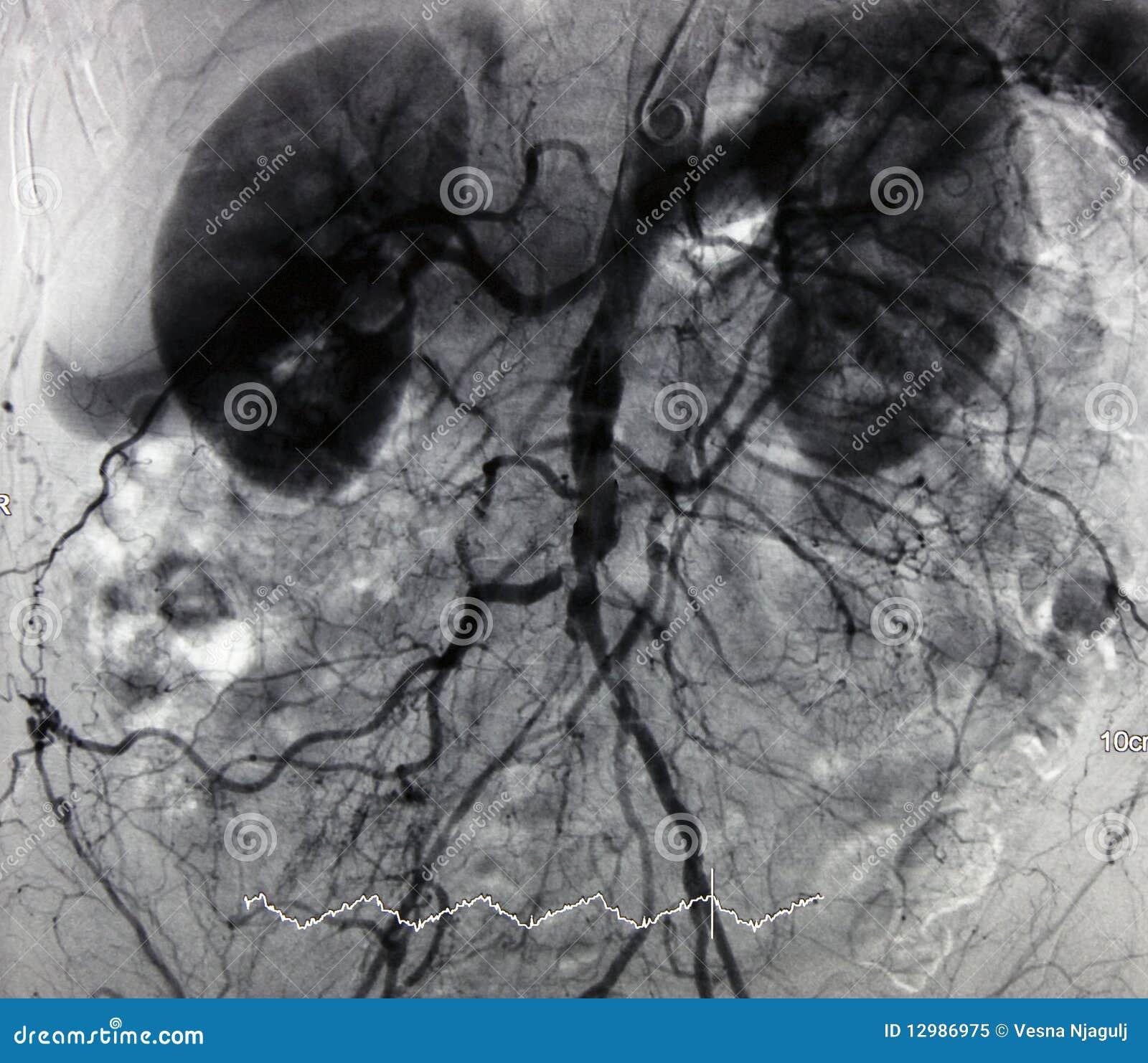 Angiografii aorty gałąź